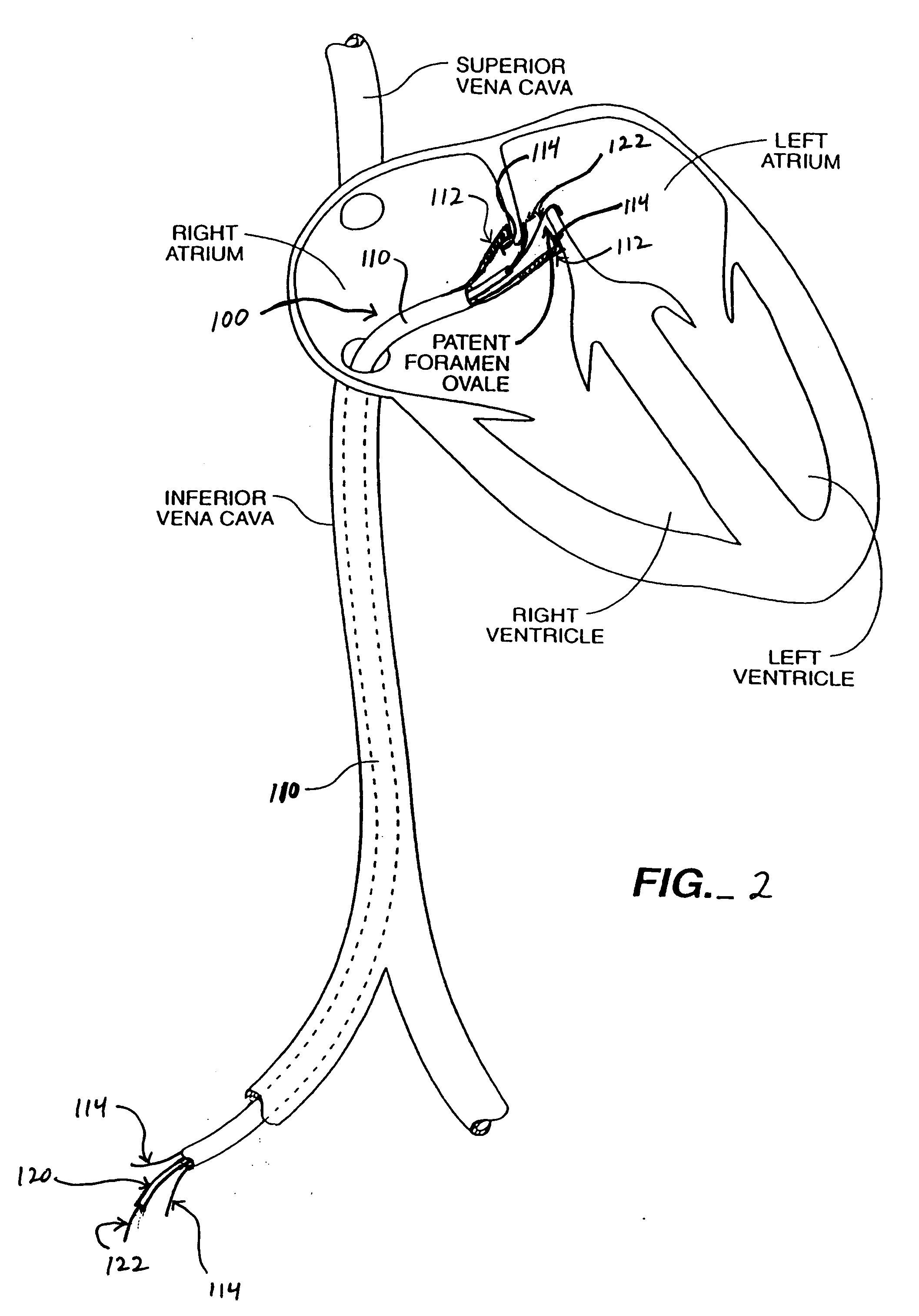 Patent US20040193147 - Energy based devices and methods ...