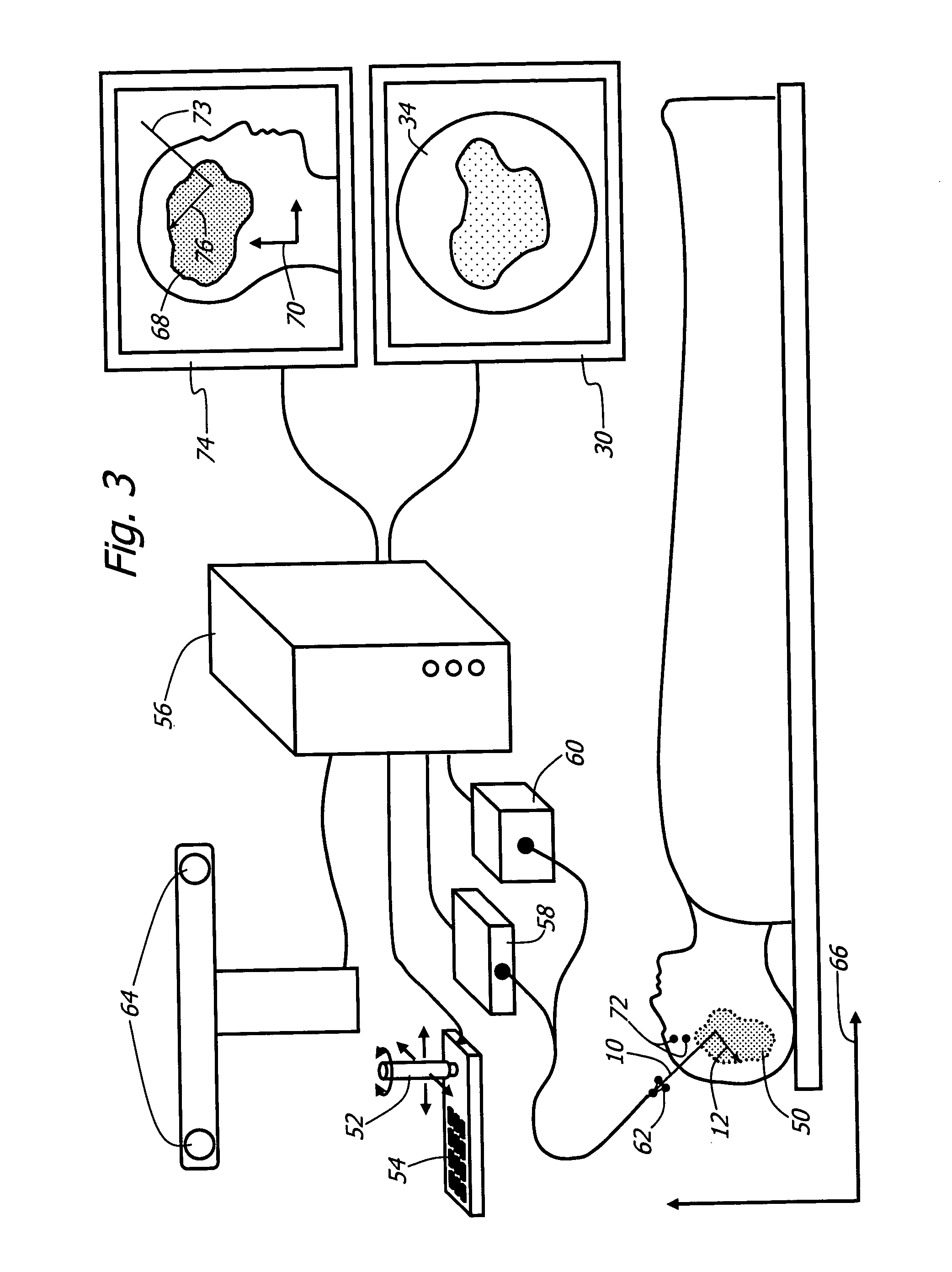 View Endoscopy Procedure: Method For Using Variable Direction