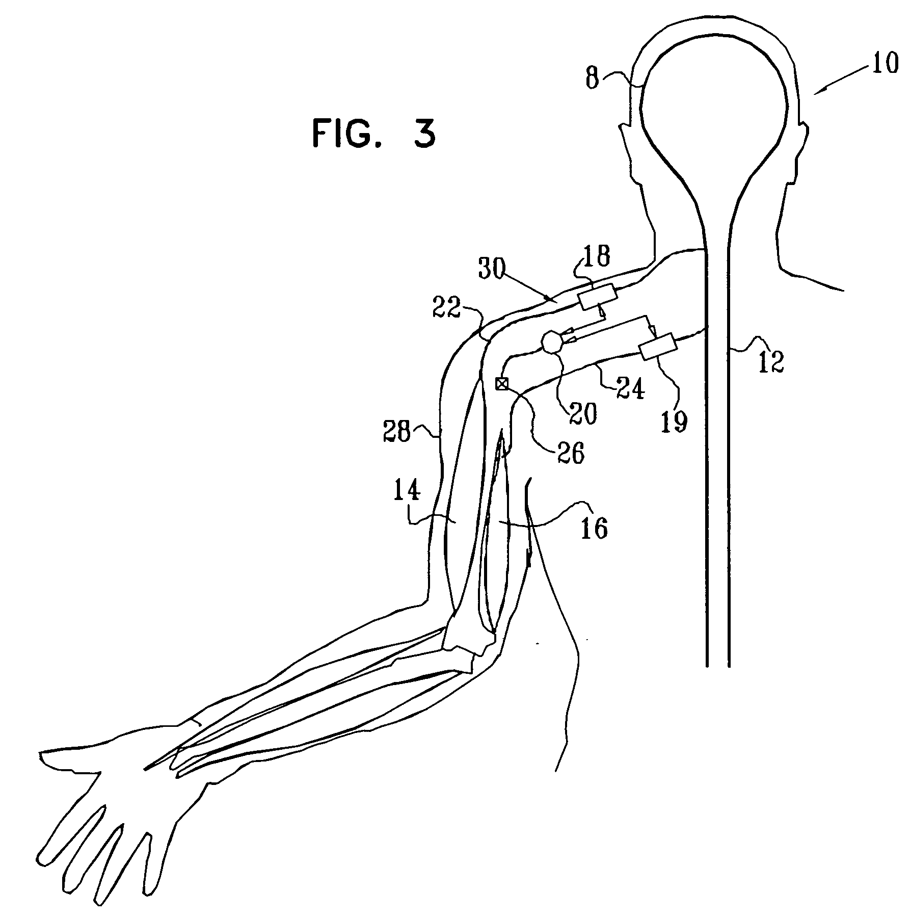Patent Drafting 101: Going a Mile Wide and Deep with Variations in a Patent Application
