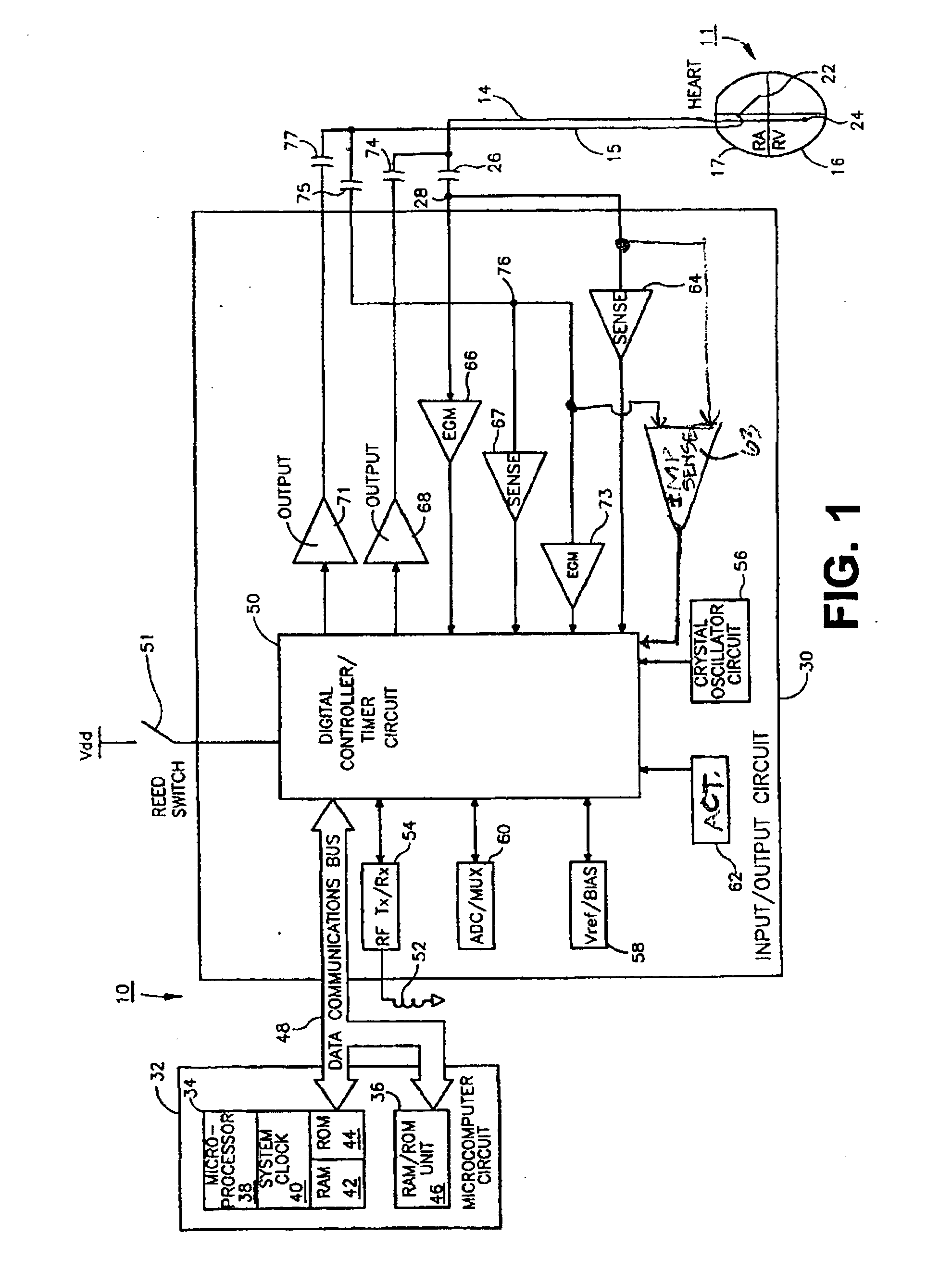 patent us20050119711 apparatus and method for monitoring for  patent drawing