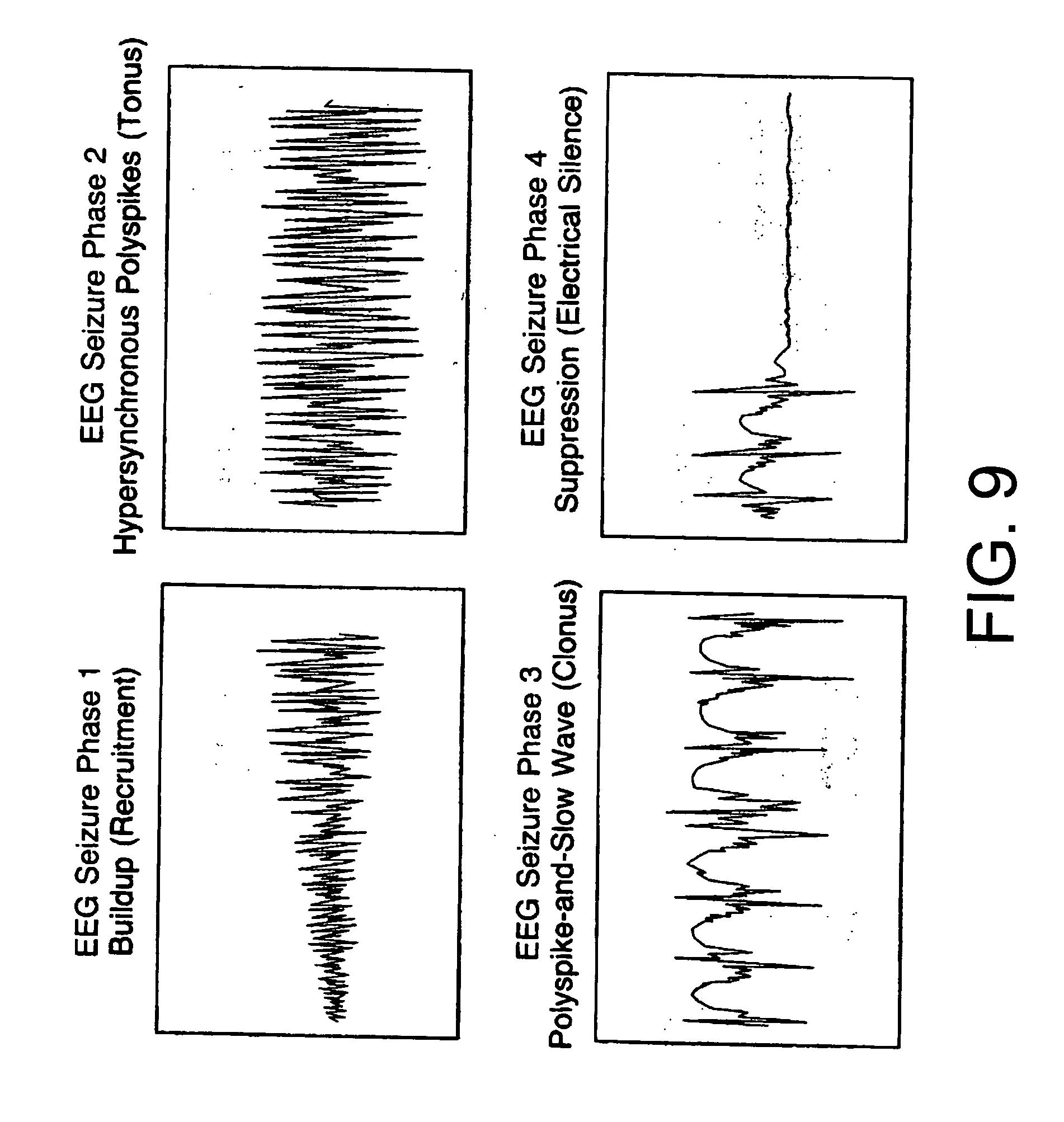 electroconvulsive therapy for depression pdf