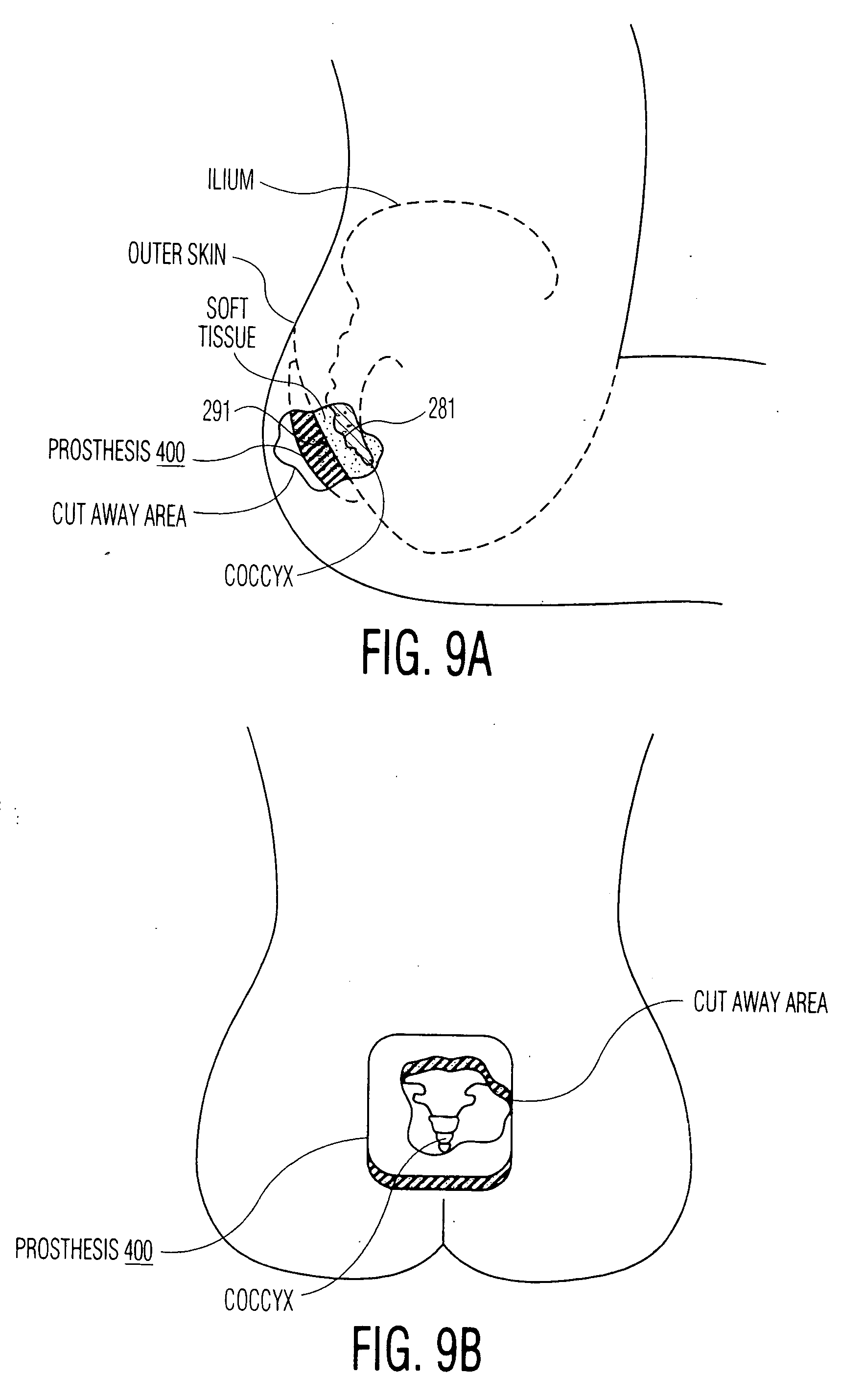patent us20070083141  or healing pressure ulcers
