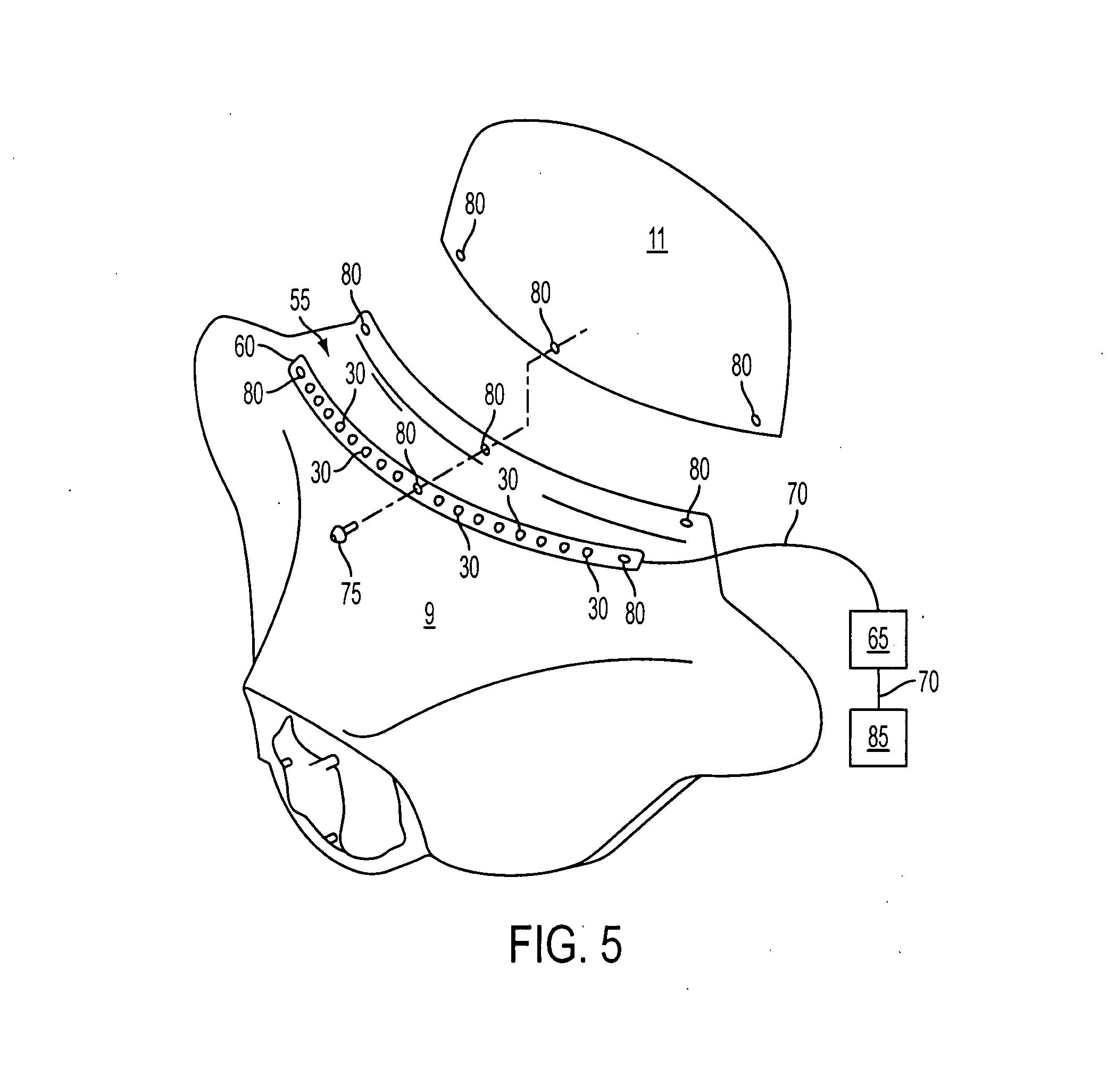 patent us20070210907