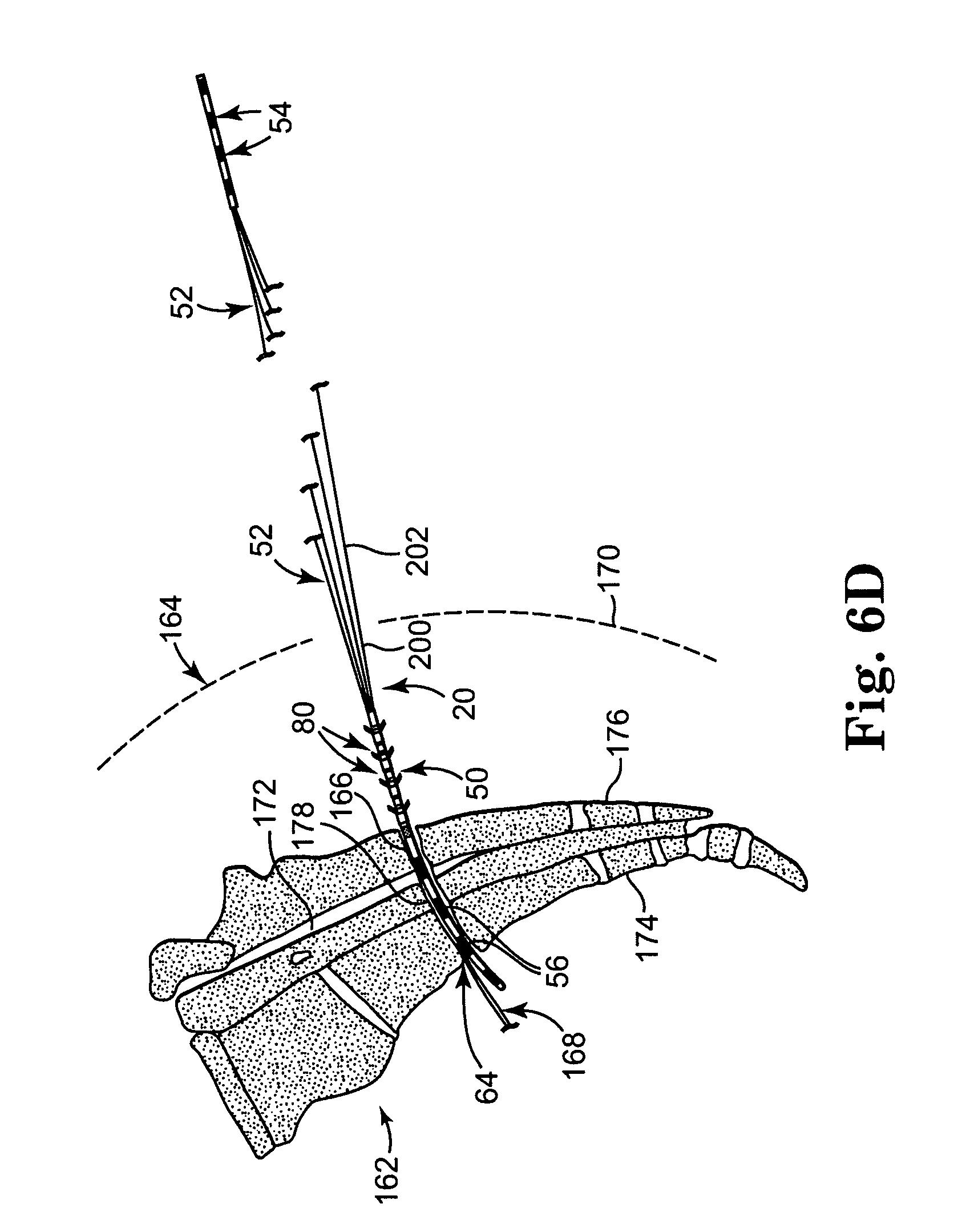 patent us20070255369