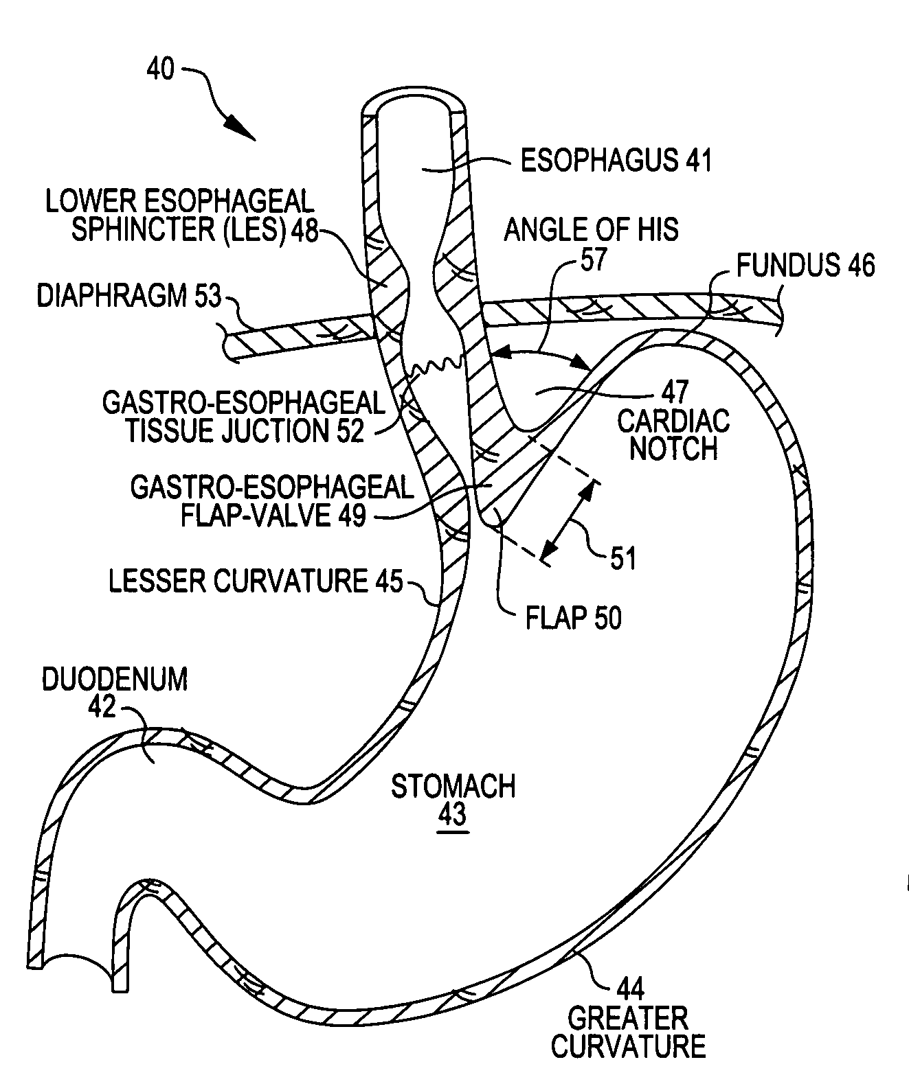 patente us20080281337 - transoral endoscopic gastroesophageal flap, Human Body
