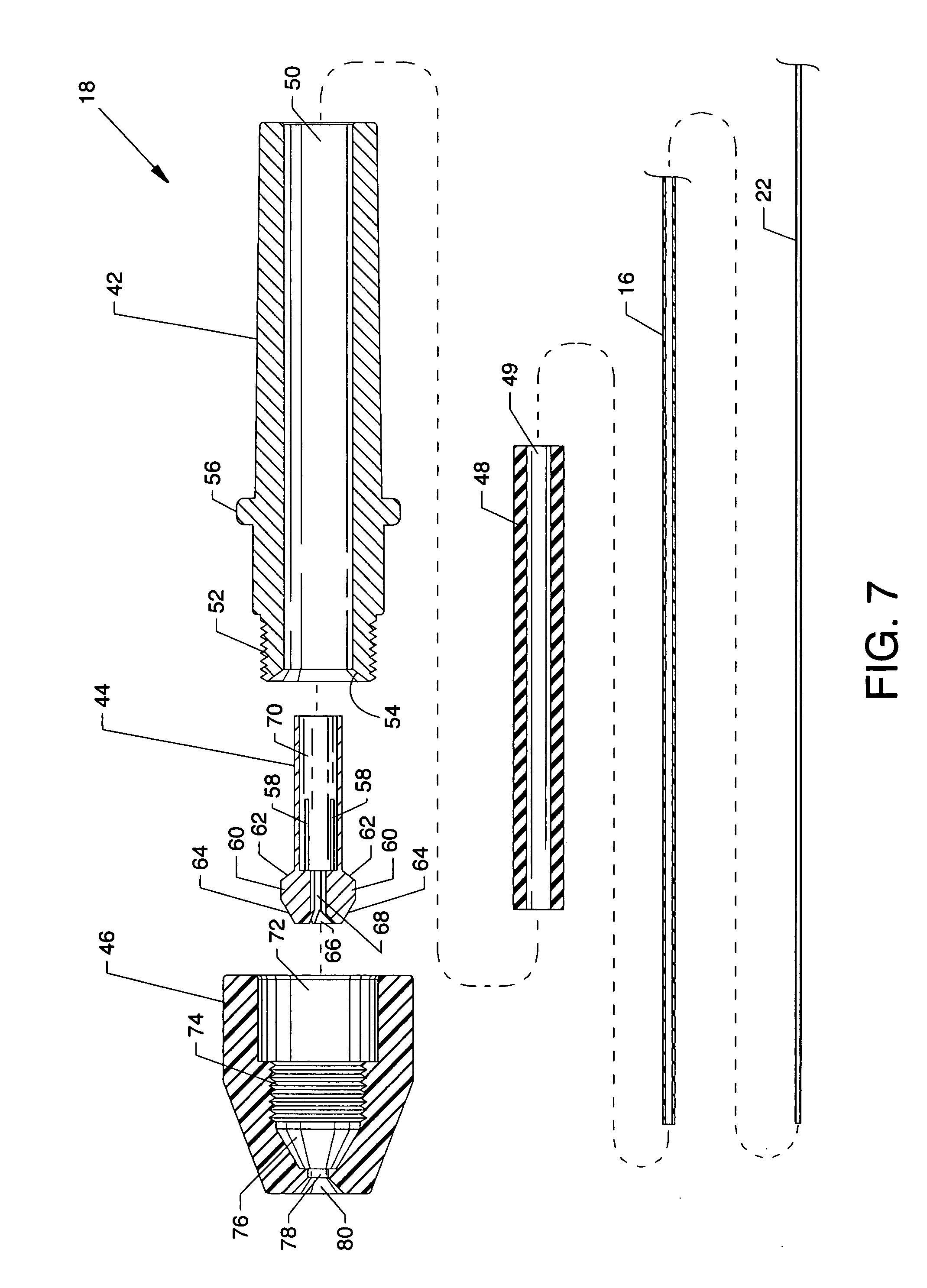 brevet us20080312671 infusion flow guidewire system
