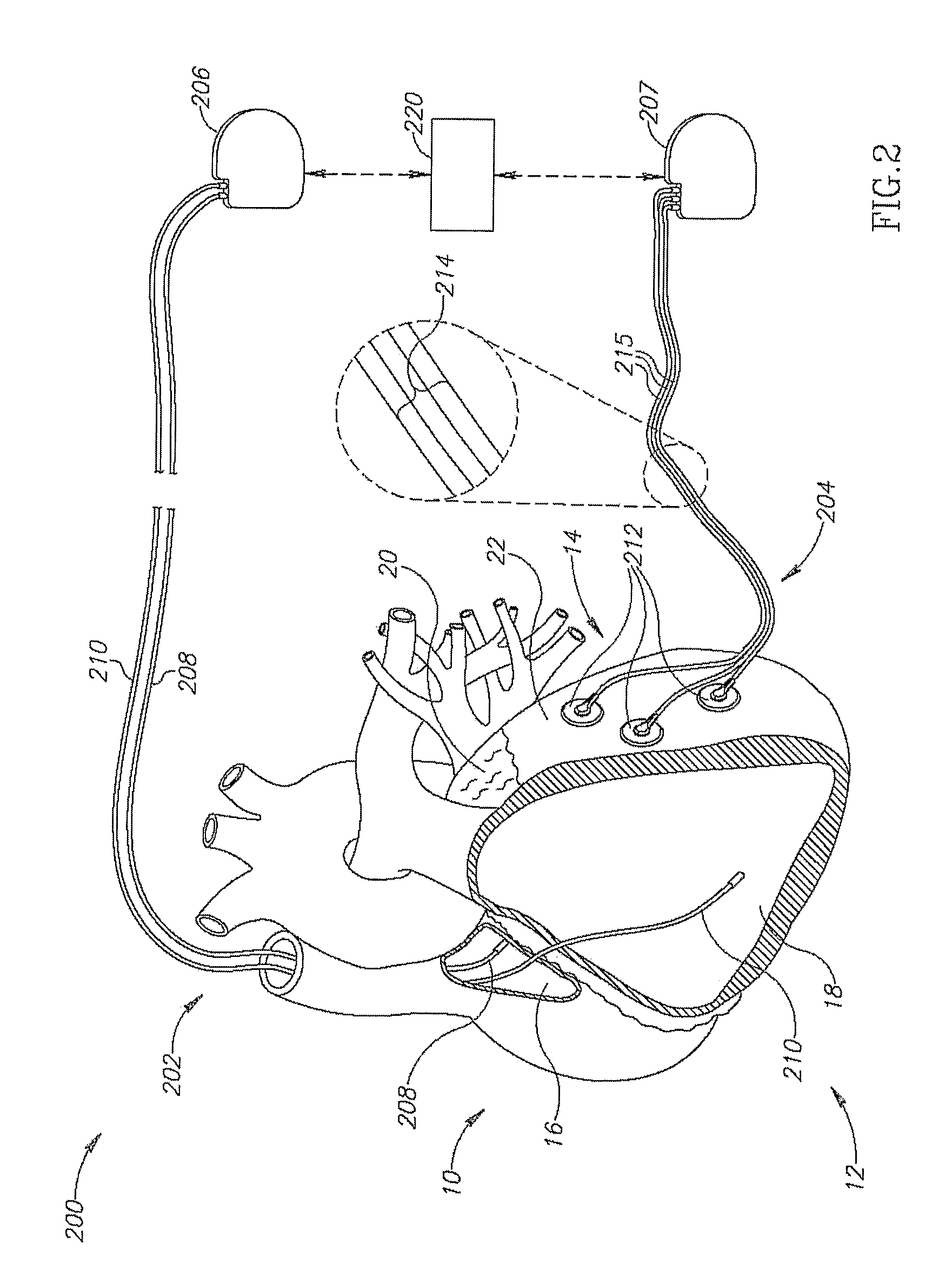 patent us20090030469 cardiac resynchronization therapy systems and Oil Electrodes patent drawing