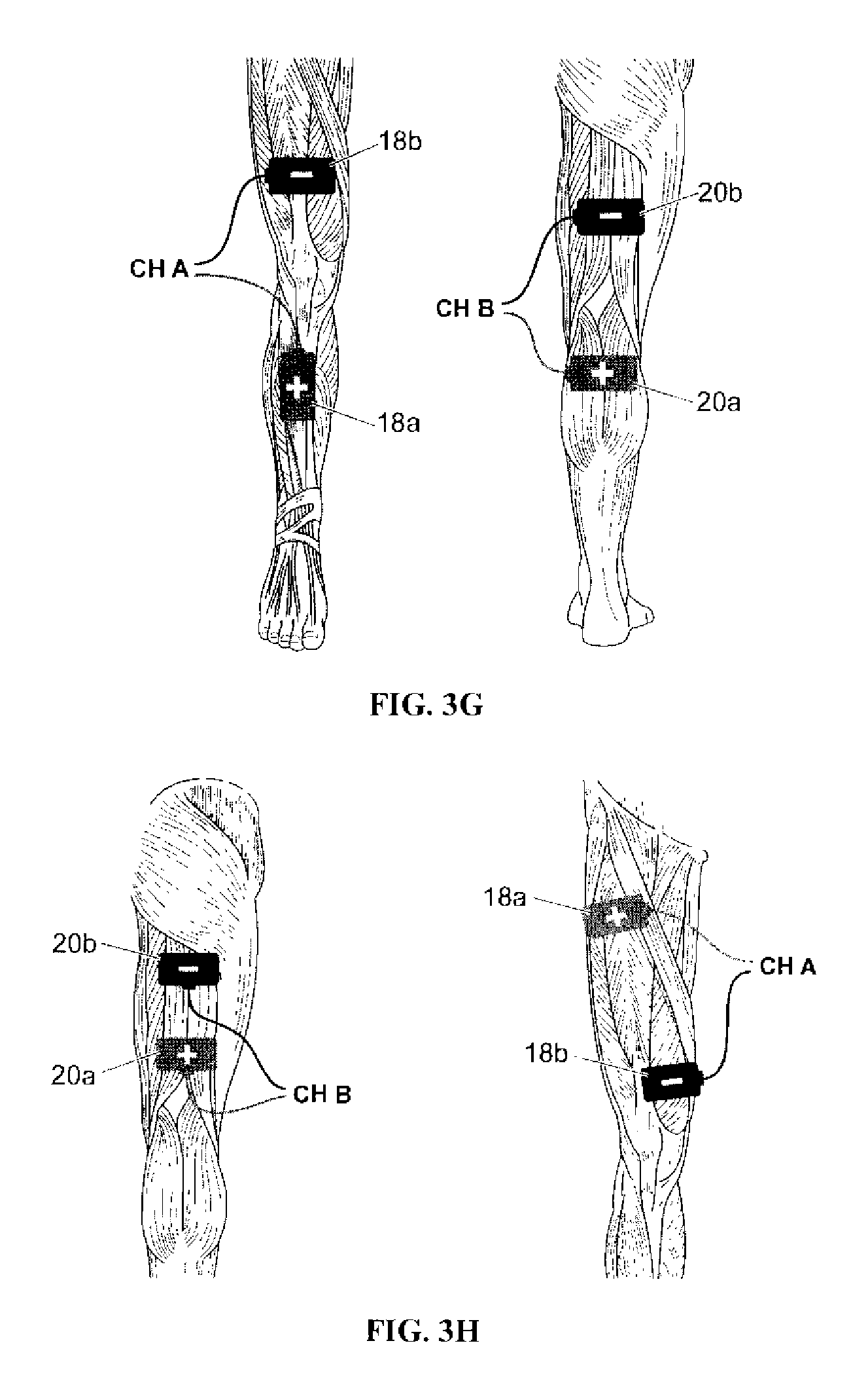 Patent Us20090326607 Electrical Stimulation Method For