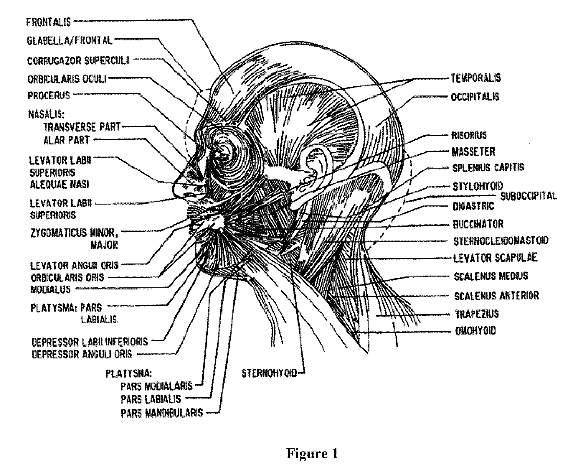 Zygomaticotemporal Foramen Patent Drawing