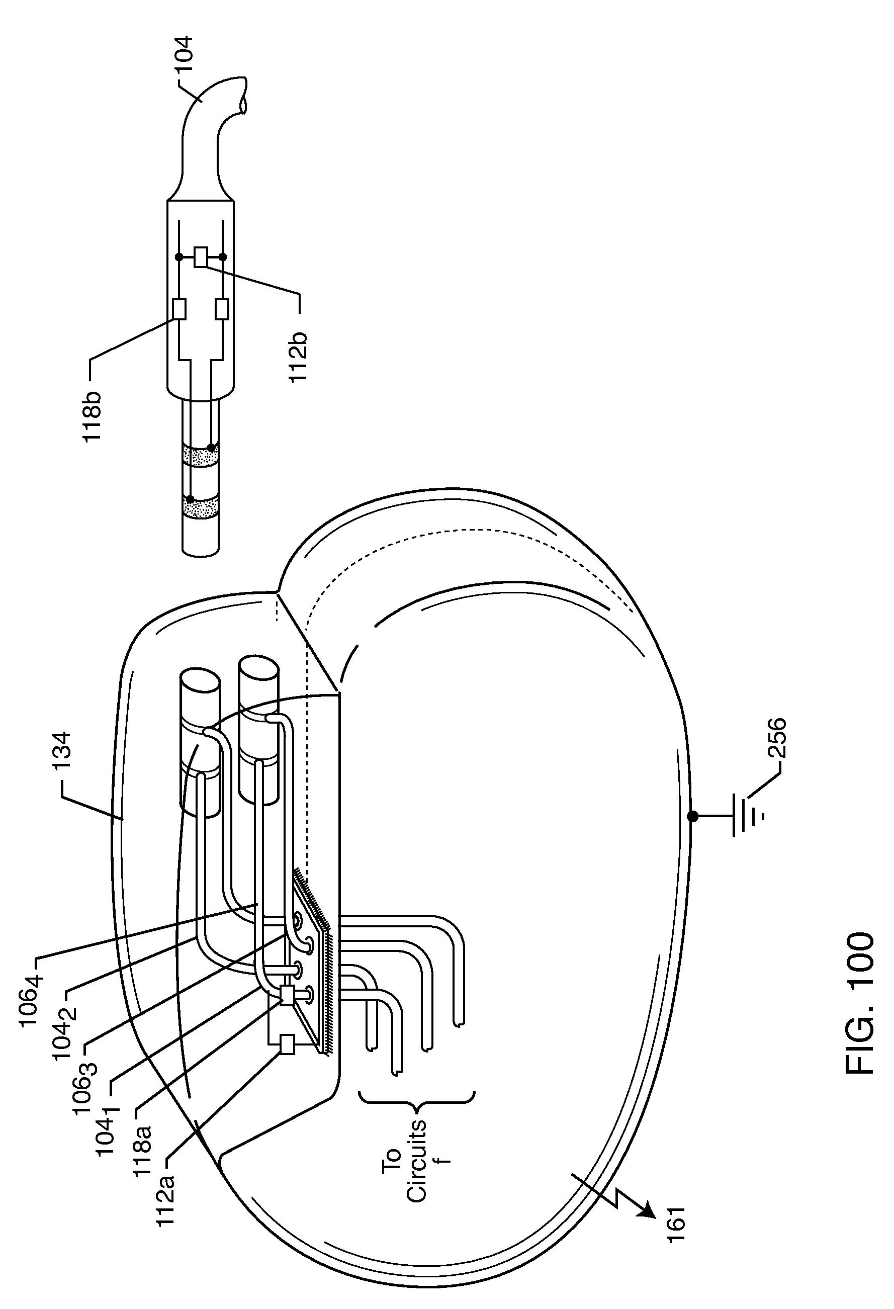 brevet us20100160997