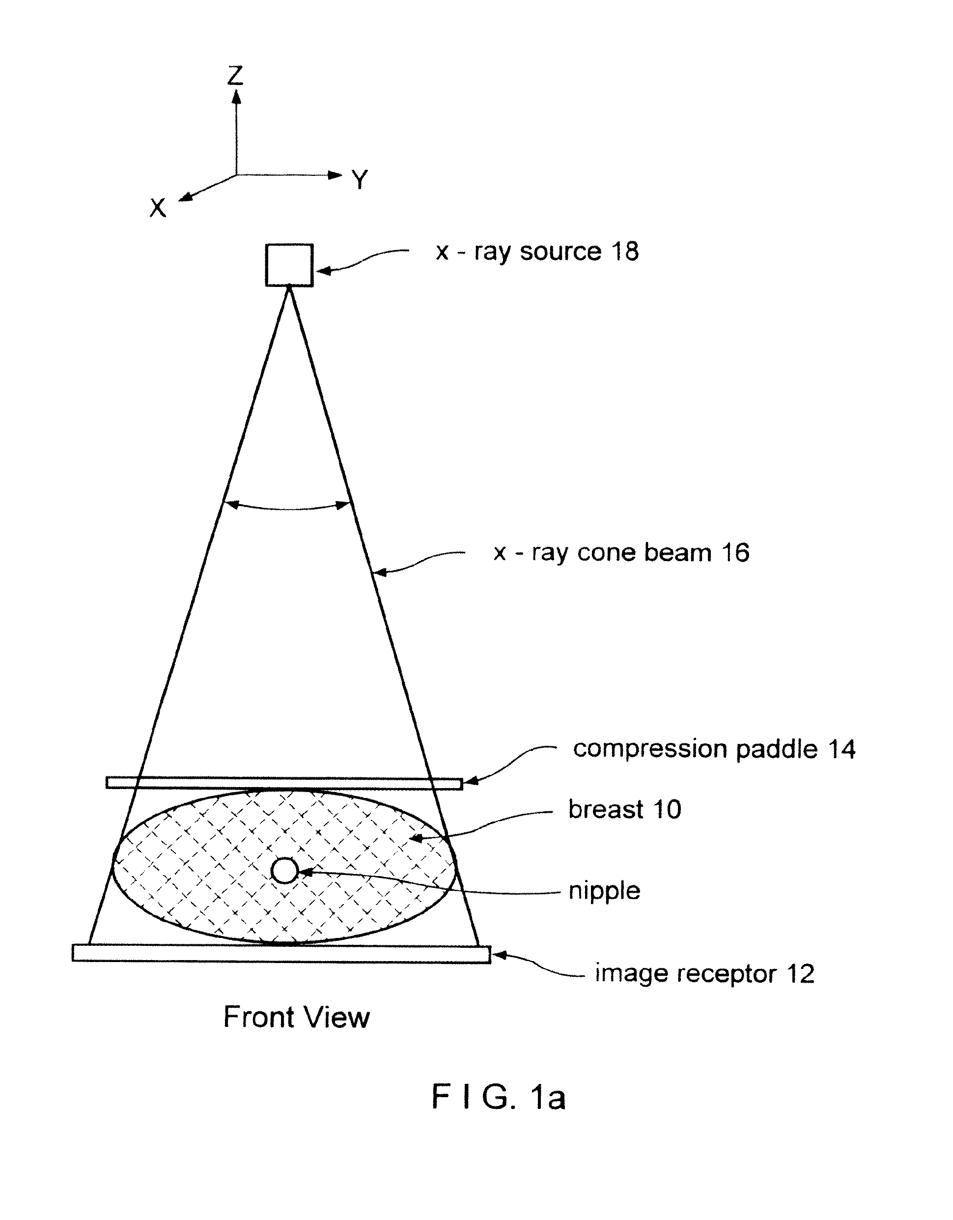 tomosynthesis images Purpose: to describe and evaluate a method of tomosynthesis breast imaging with a full-field digital mammographic system materials and methods: in this tomosynthesis method, low-radiation-dose images were acquired as the x-ray source was moved in an arc above the stationary breast and digital .