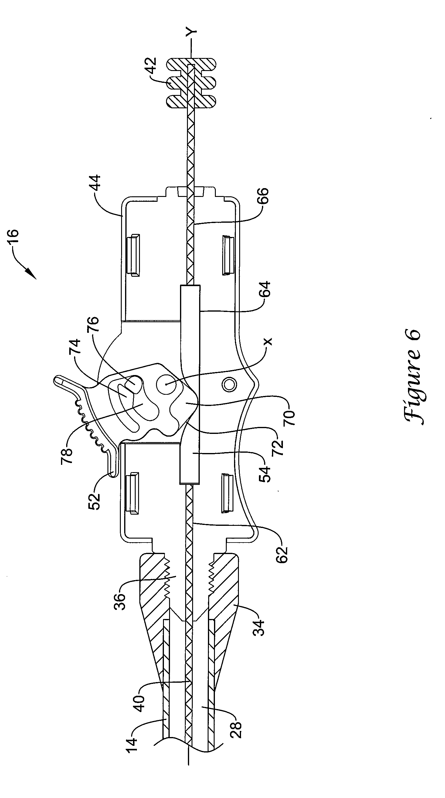 Patent Us20110077621 Locking Mechanism For A Medical