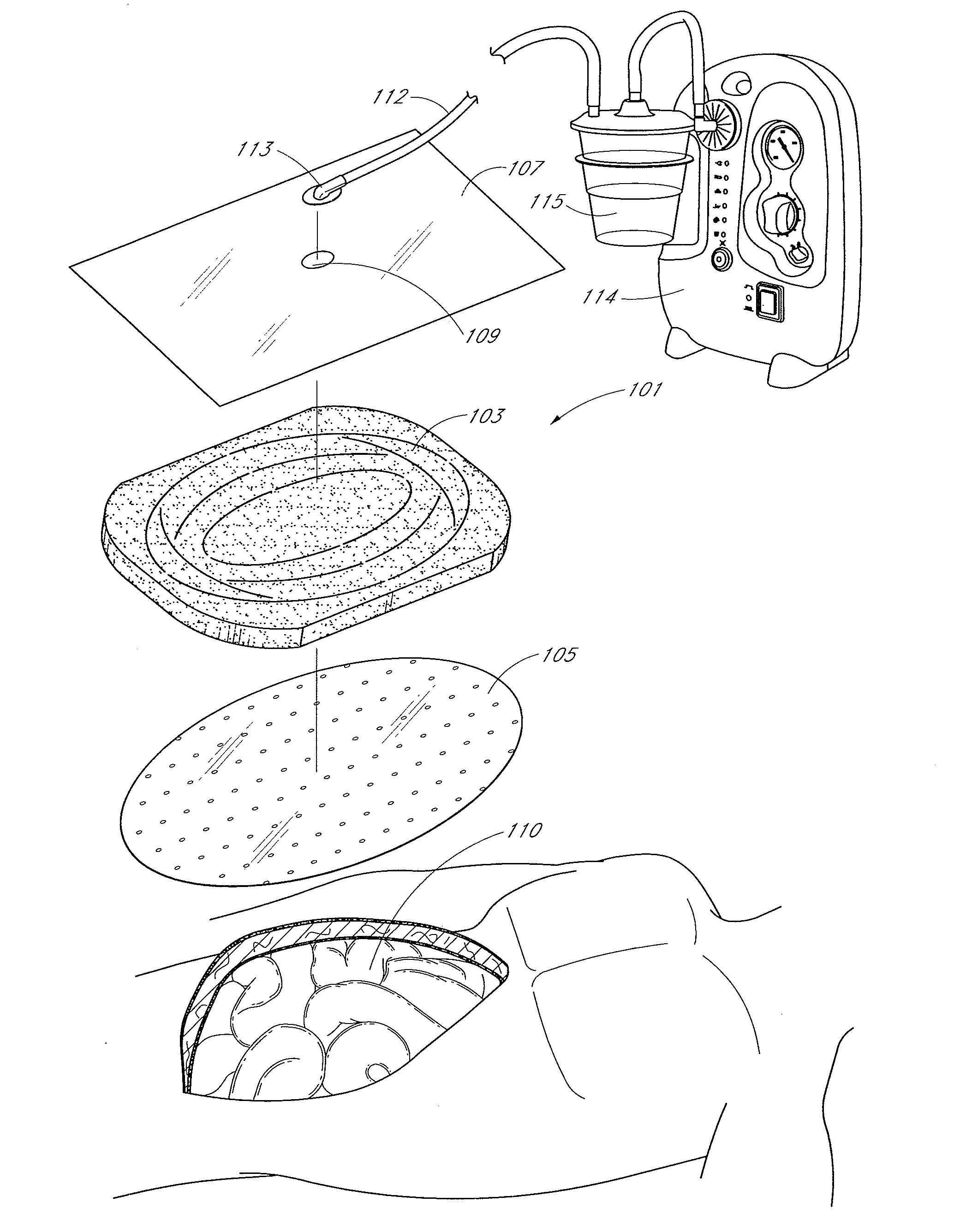 patent us20110213287