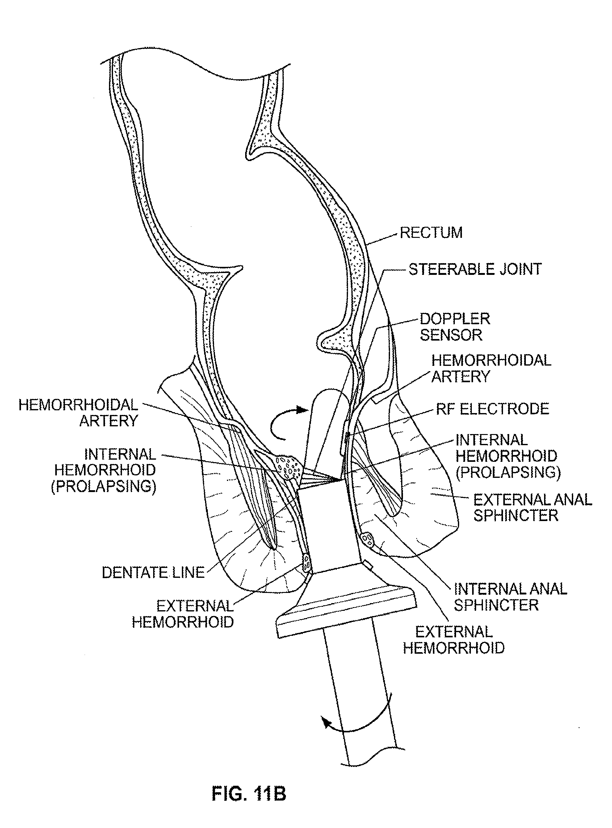 Her prettily Precise calibrated anal sphincter dilatation