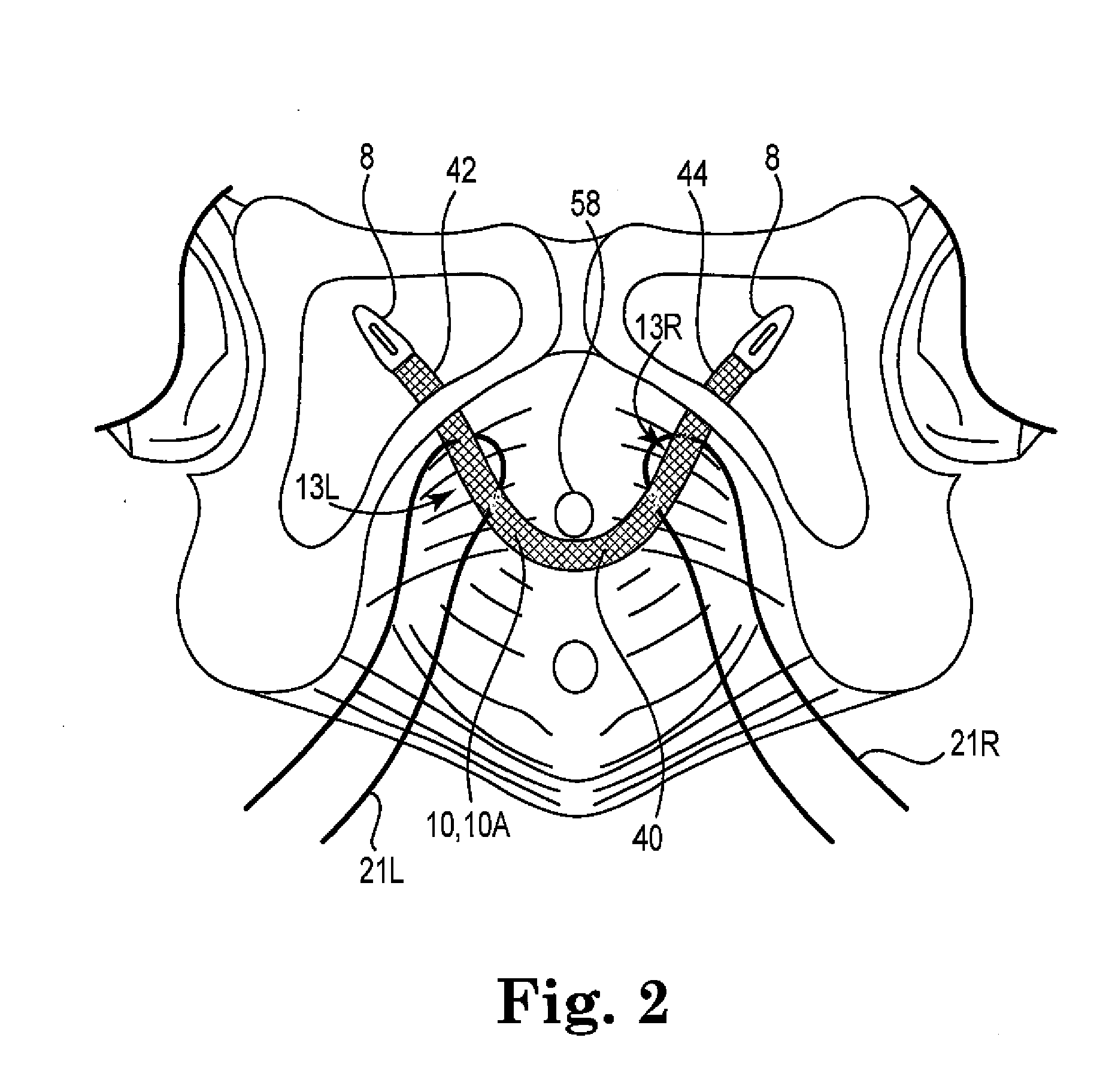 patent us20120253106 - implants  tools  and methods for treatment of pelvic conditions