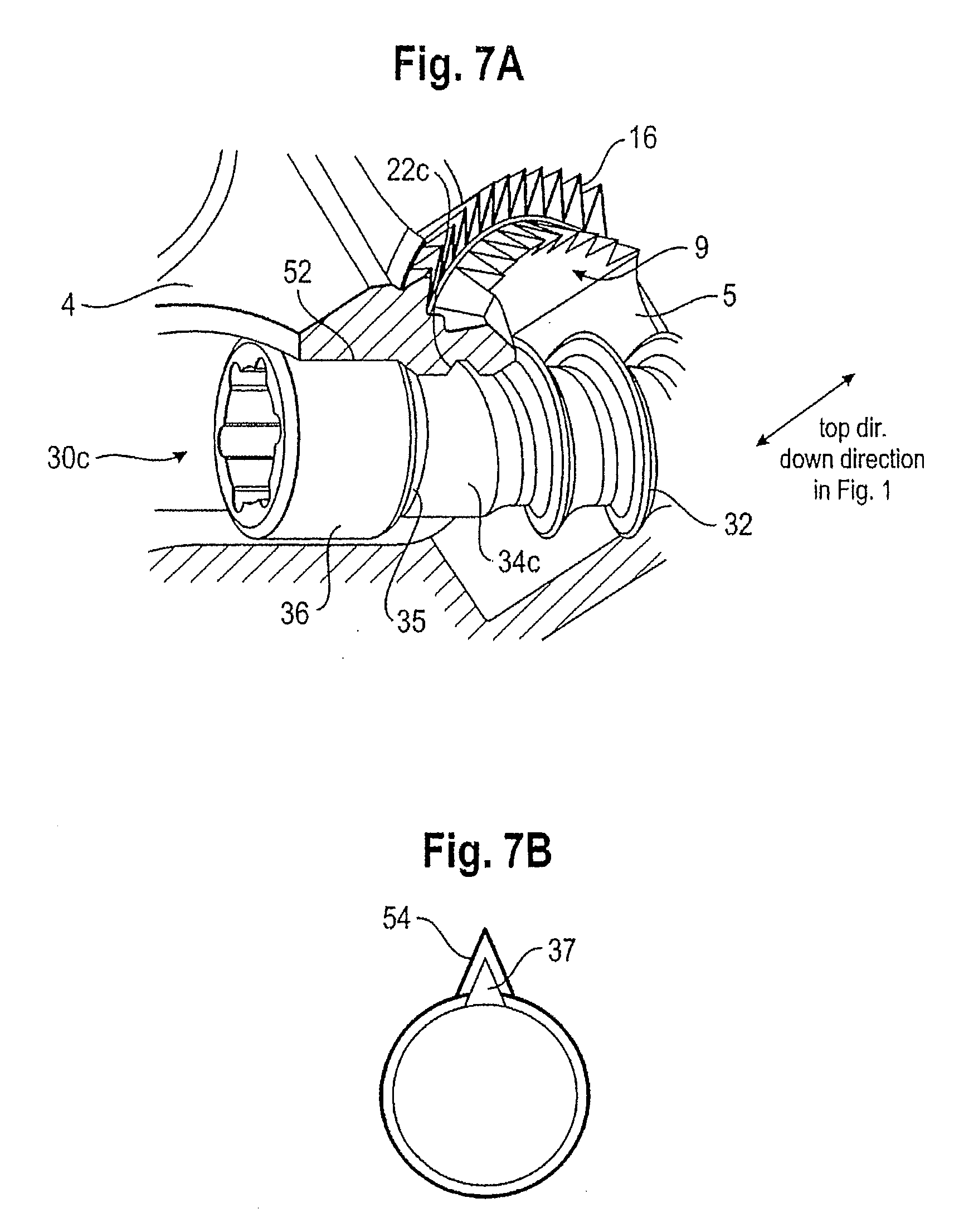 patent us20130066428 fixation device for bones patents External Fixator Fingers patent drawing
