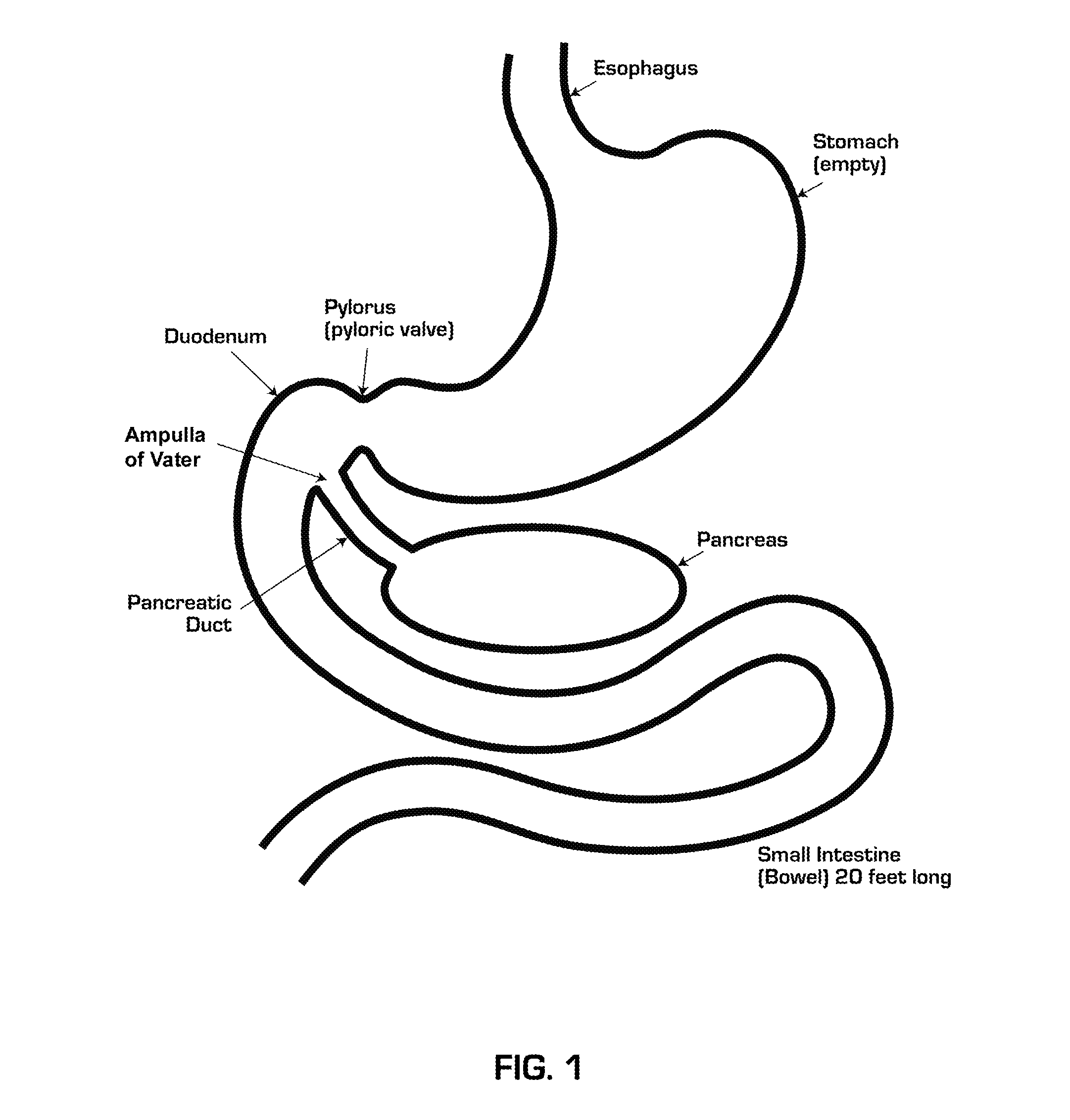 Diagram Of Volvulus Opinions About Wiring Circuit Nokia 1100 The Gallery For Gt Terminal Ileum Location Labelled Onchocerca Gastric In Humans
