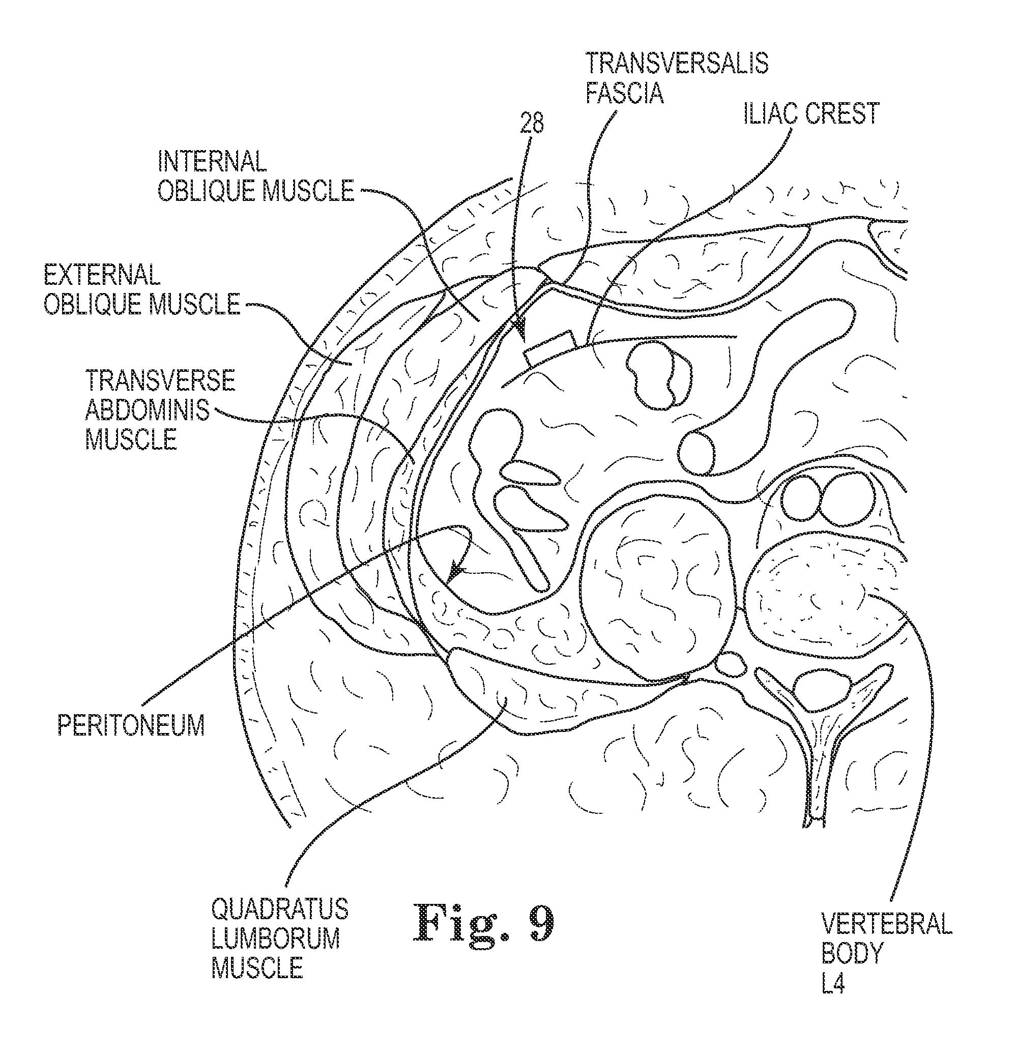 Patent Us20130261386