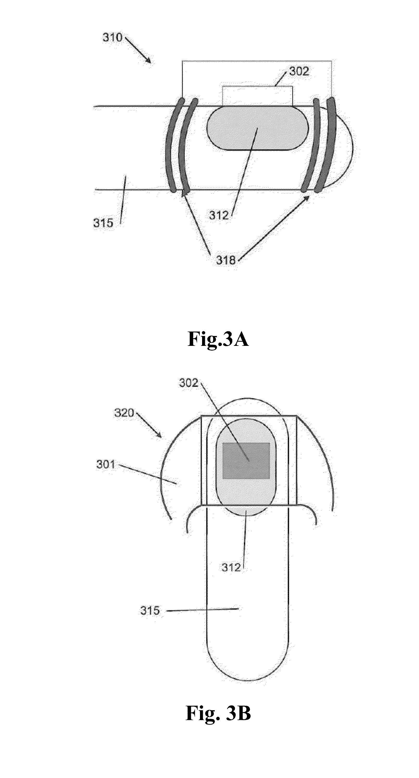 Patent us20140194955 device and method of treating fungal nail patent drawing pooptronica Choice Image