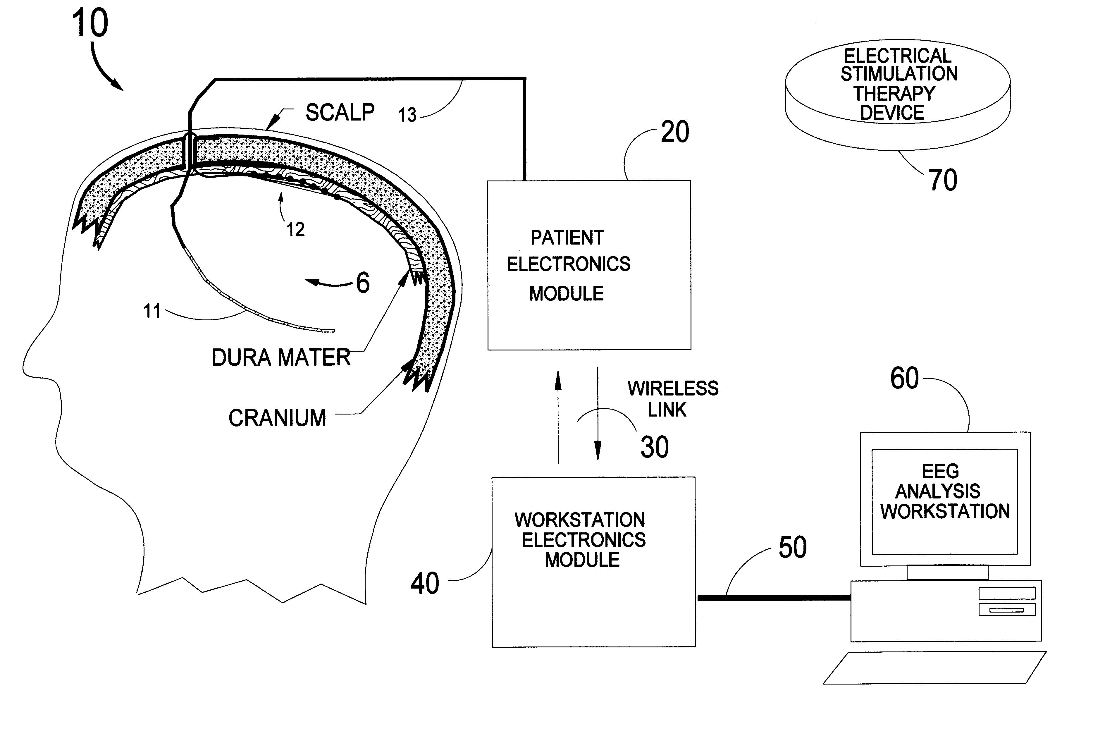 patent us6230049