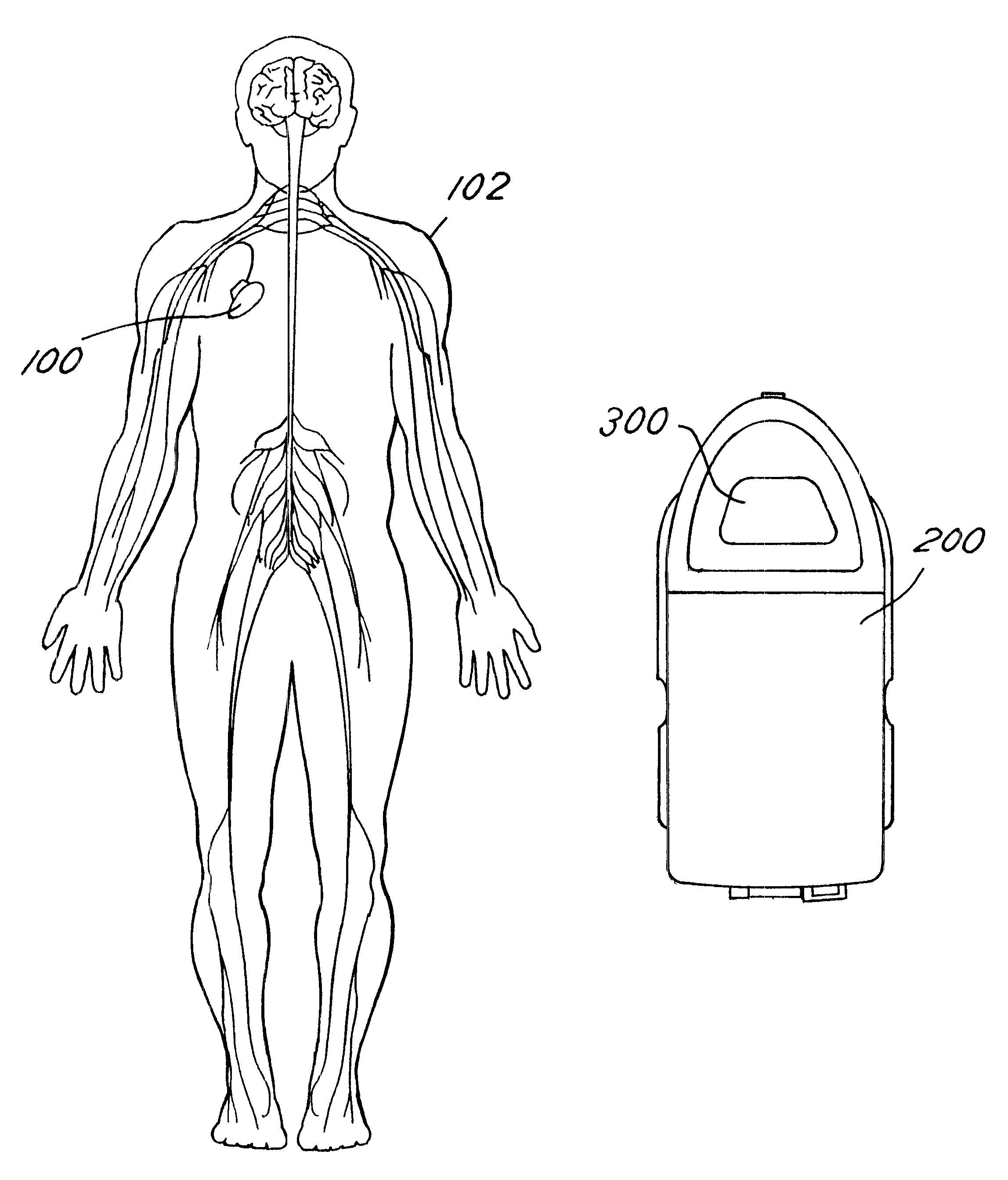 patente us6647299