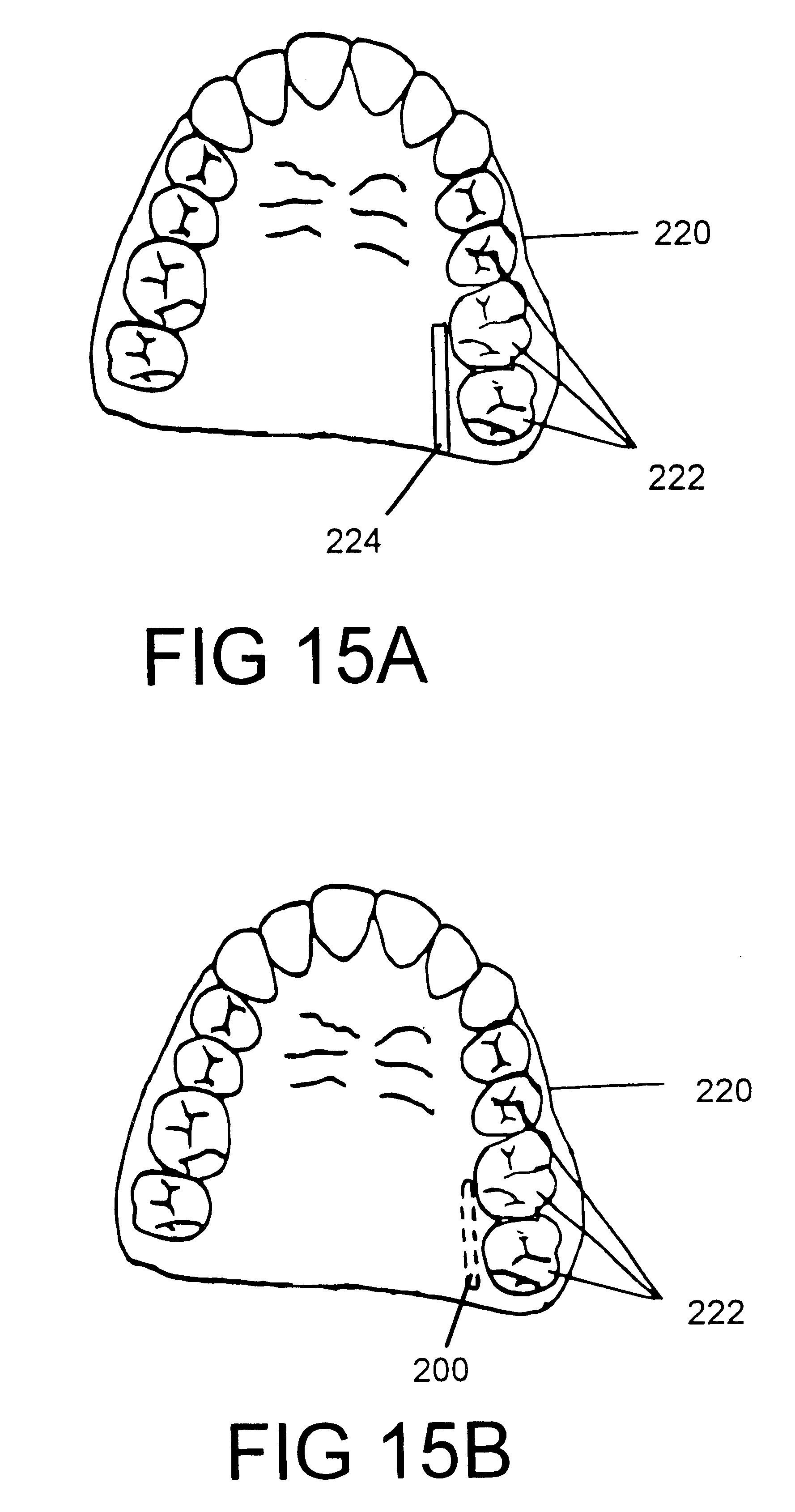 patent us6734795