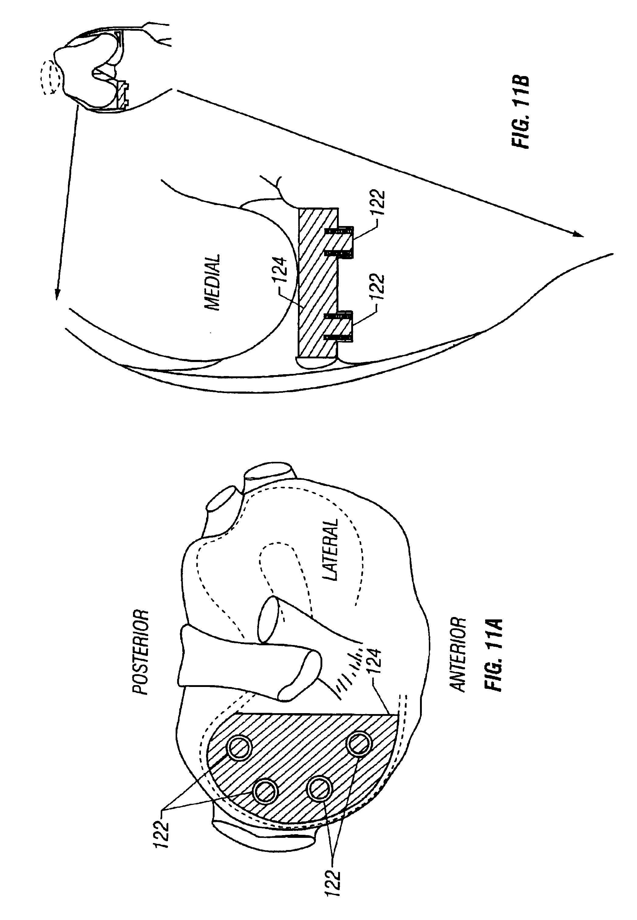 patent us6852125 - cartilage repair plug
