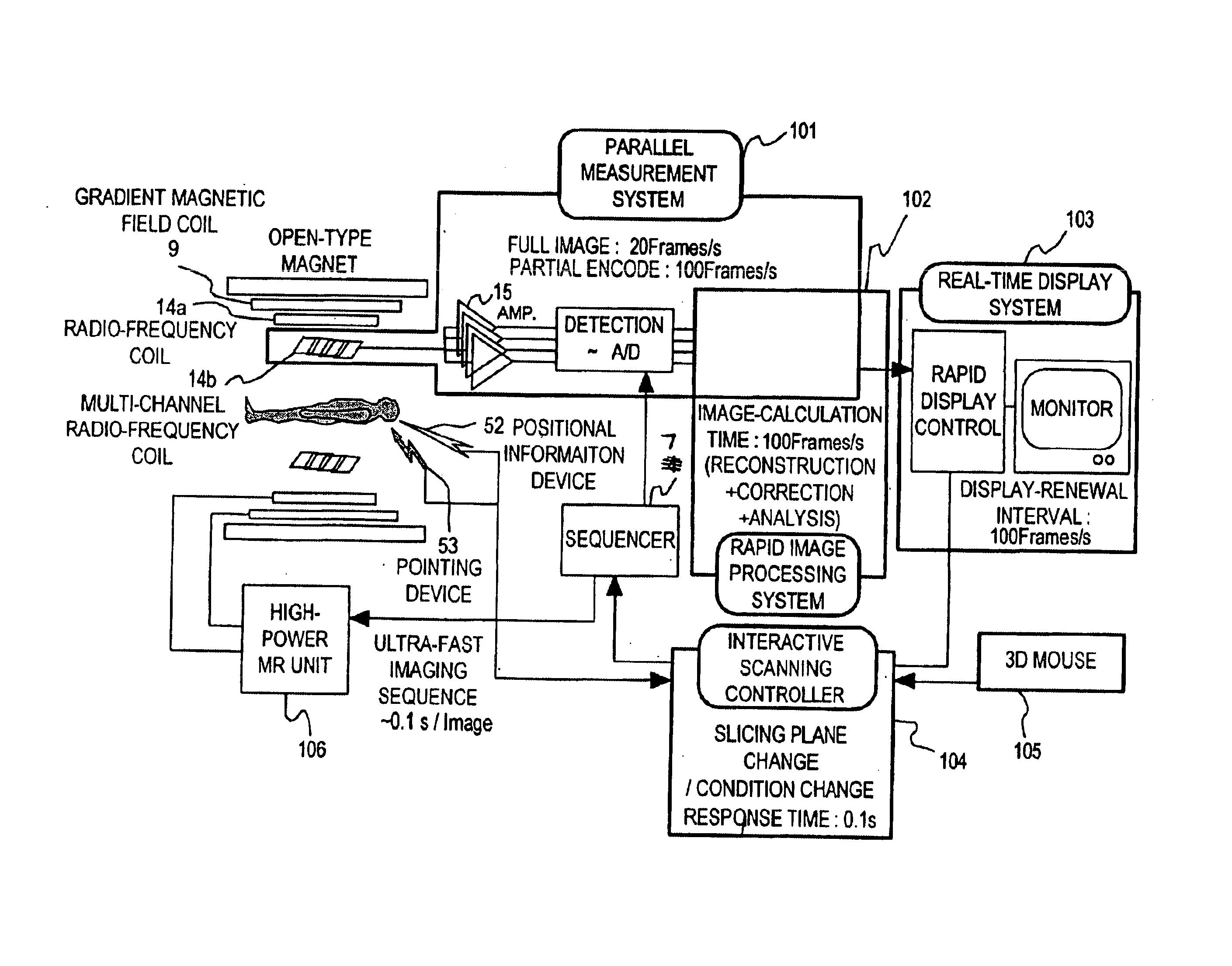 patent us6876198