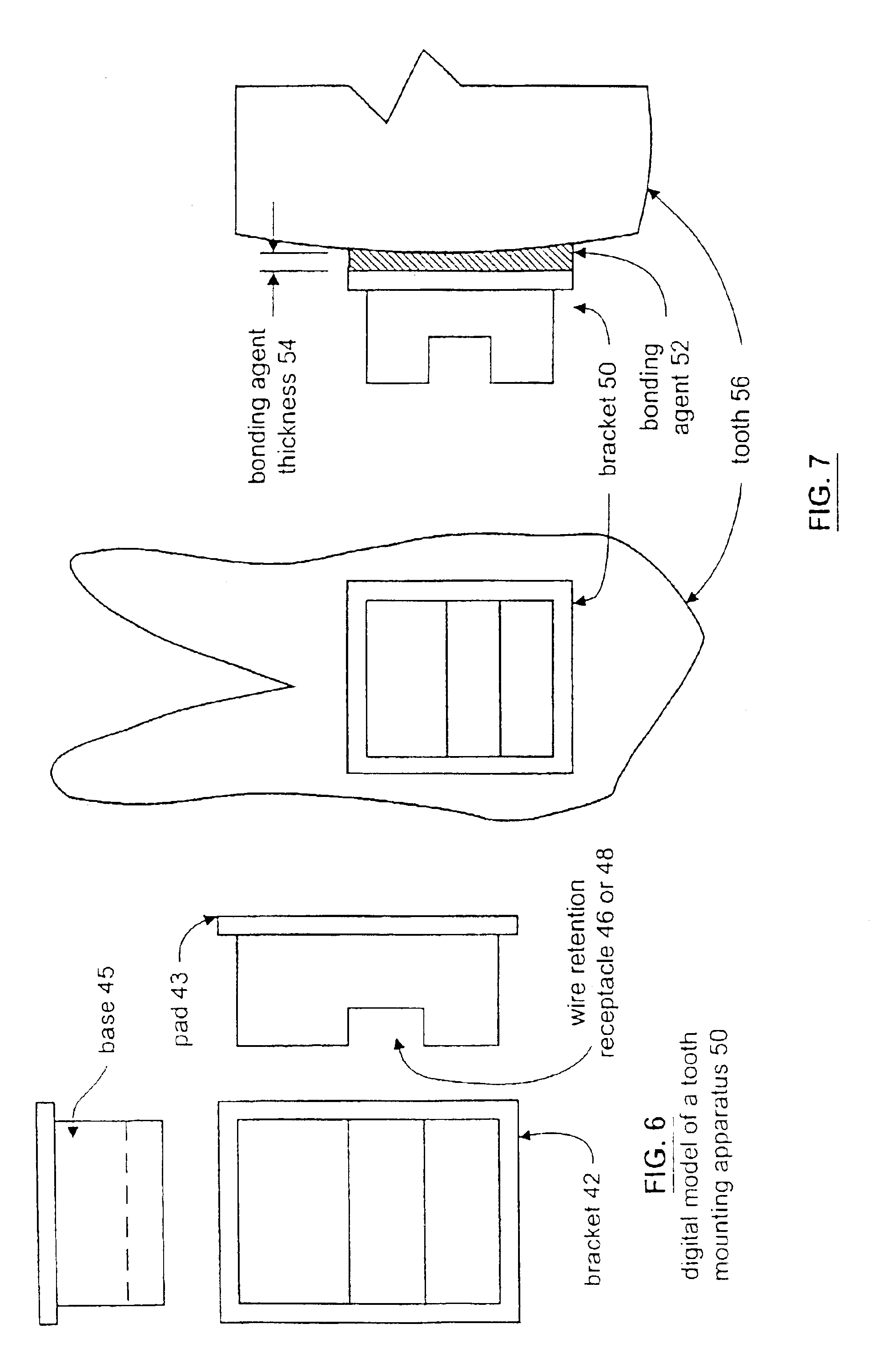 patent us6918761 method and apparatus for generating an orthodontic template that assists in. Black Bedroom Furniture Sets. Home Design Ideas