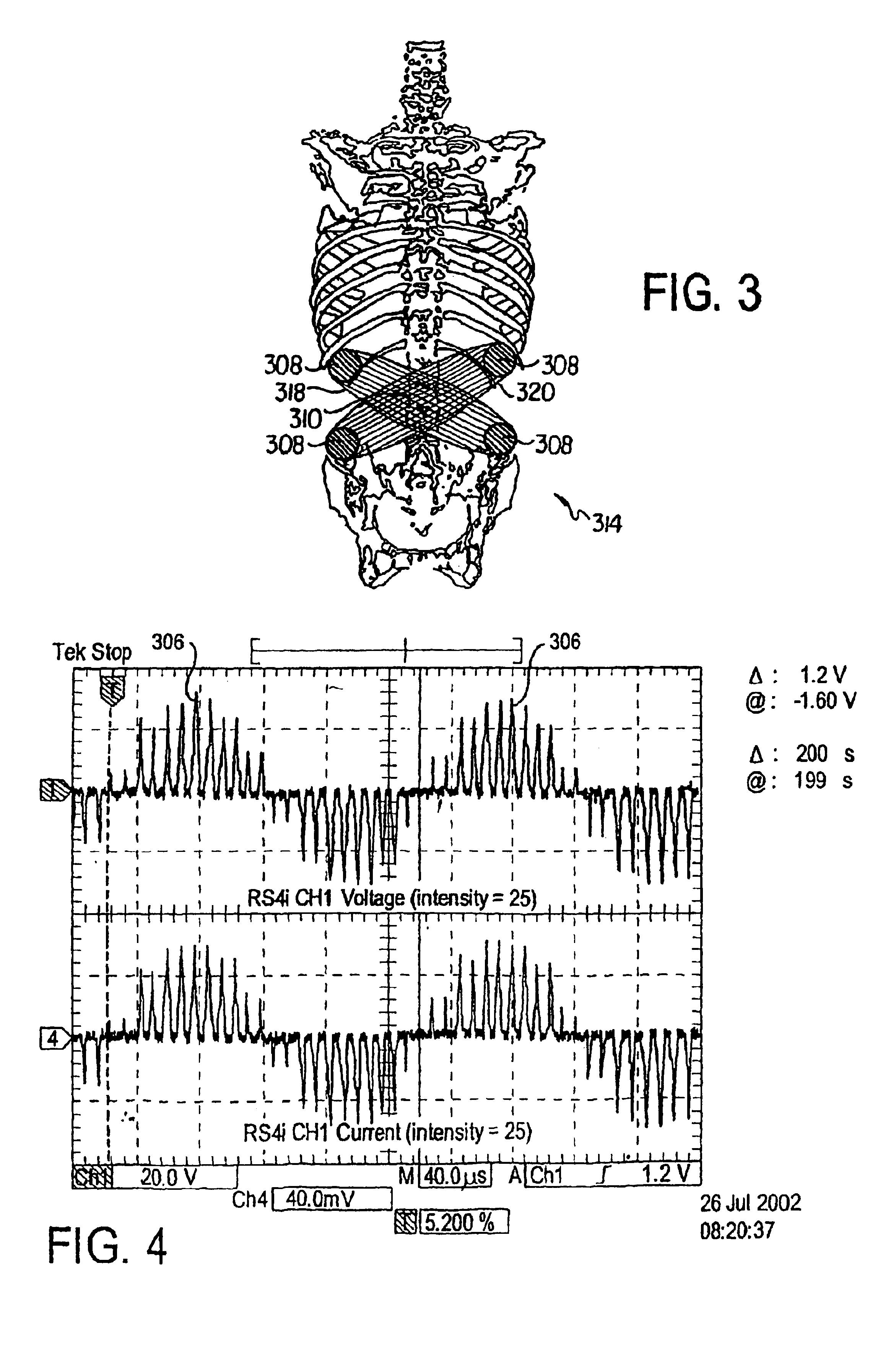patent us6937905