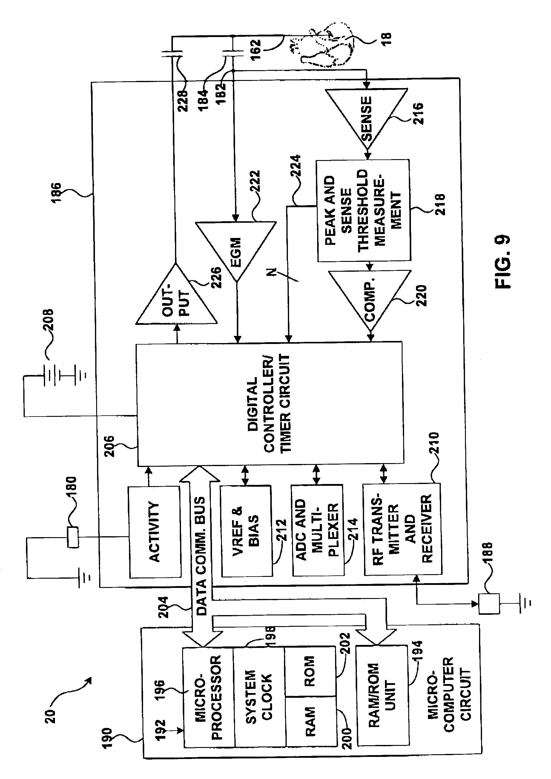 patente us7024244