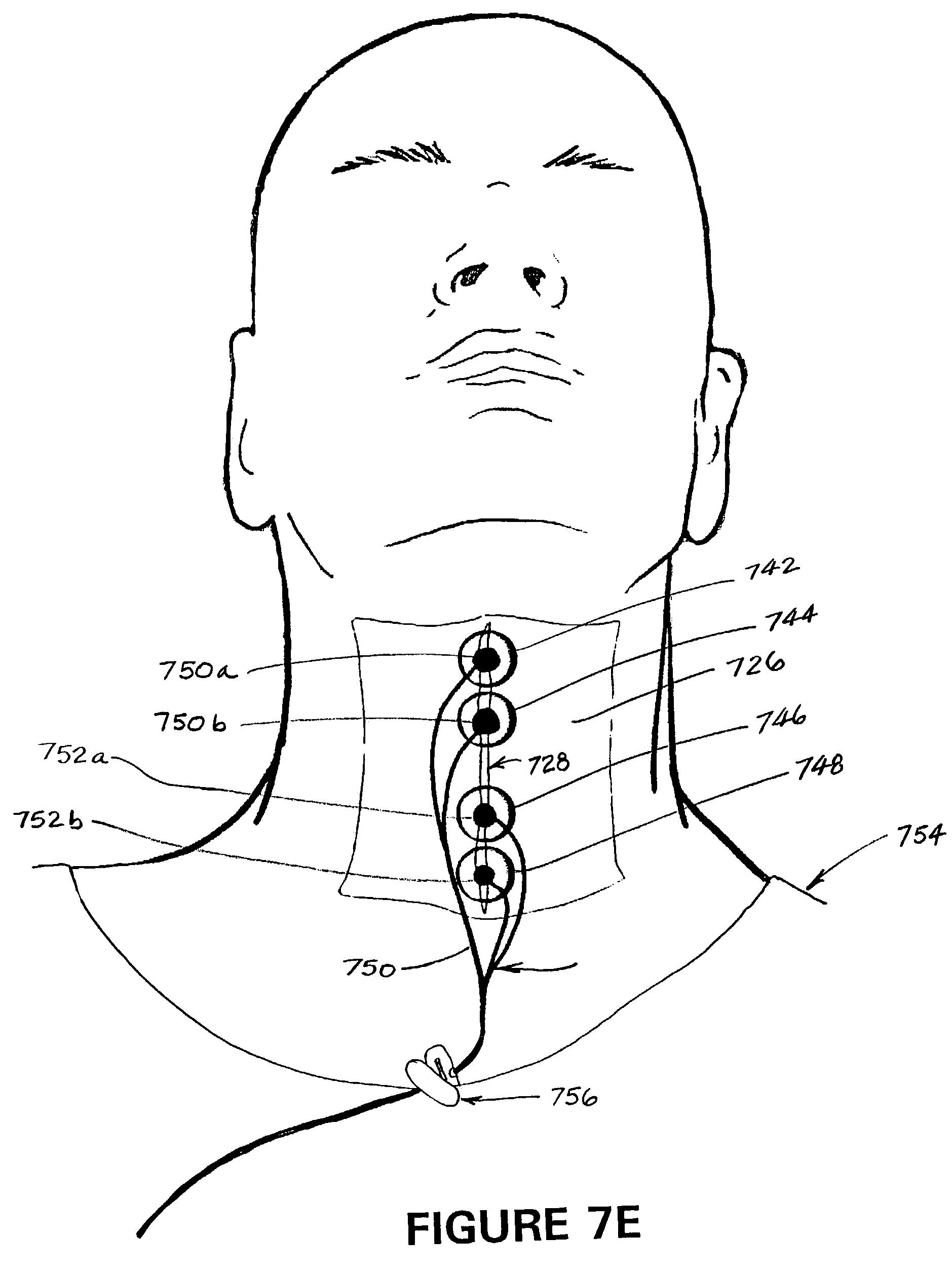 patent us7039468