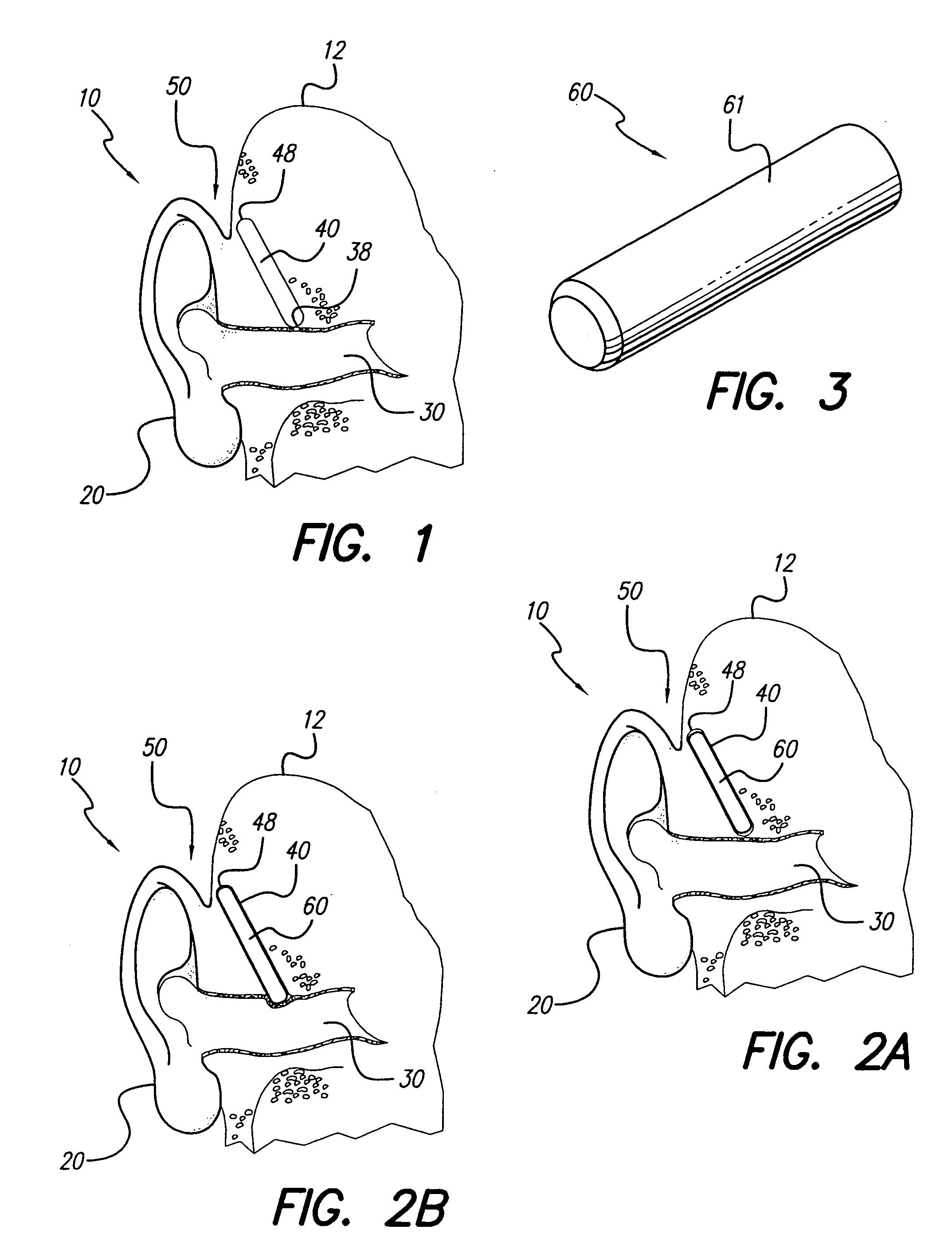 patent us7127078 - implanted outer ear canal hearing aid