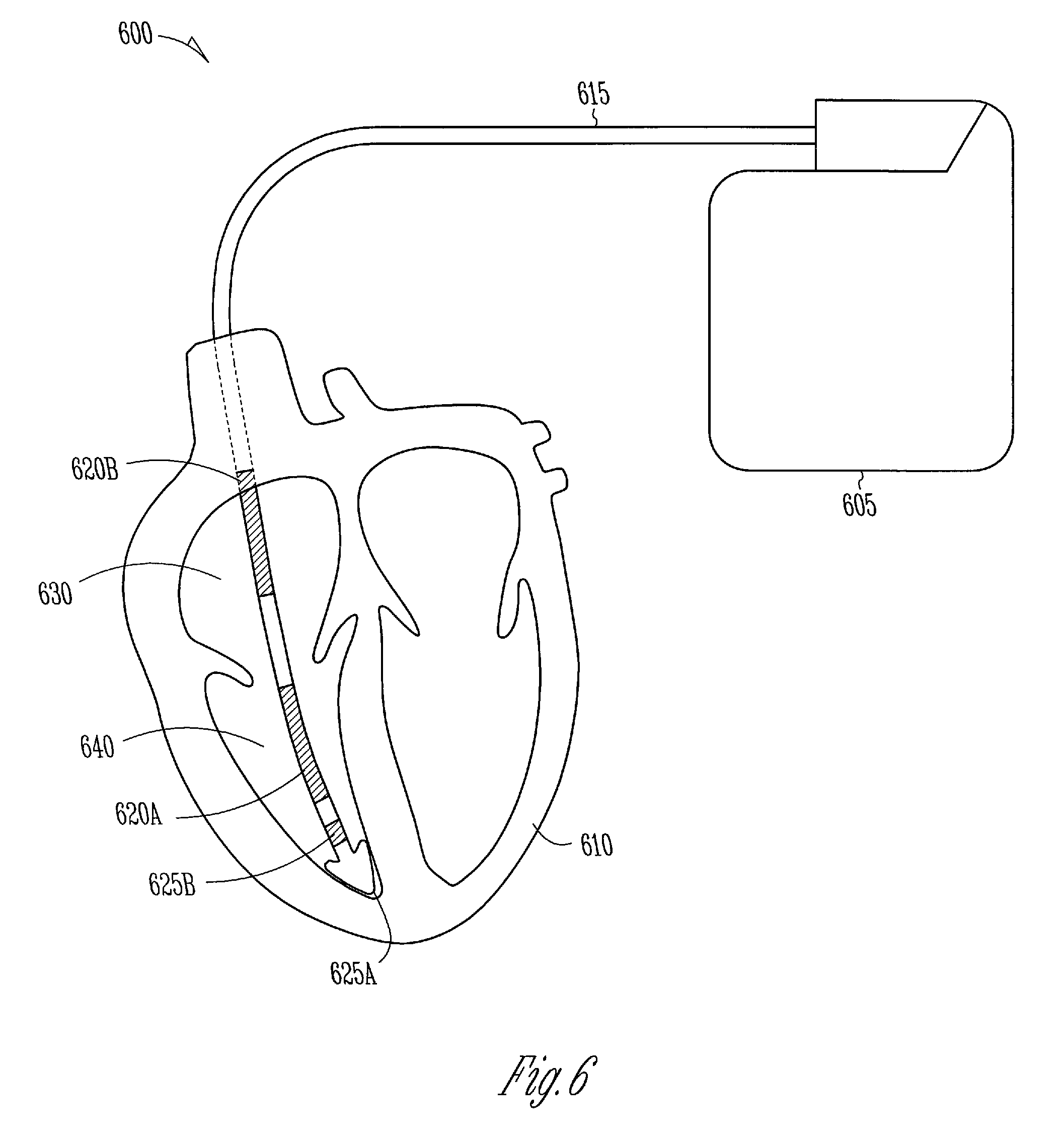 patente us7225018 flyback transformer wire attach method to patent drawing