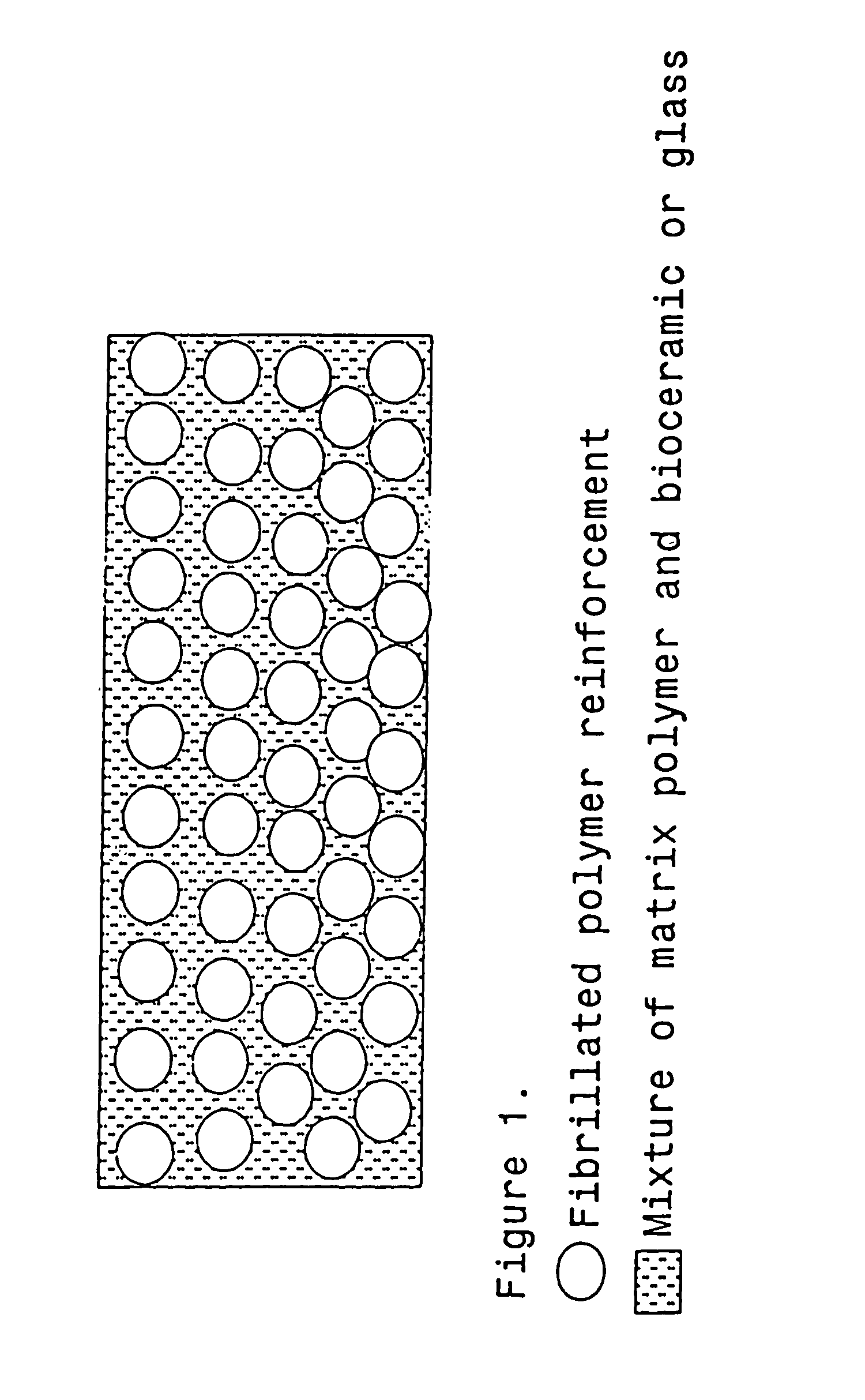 Osteosynthesis material