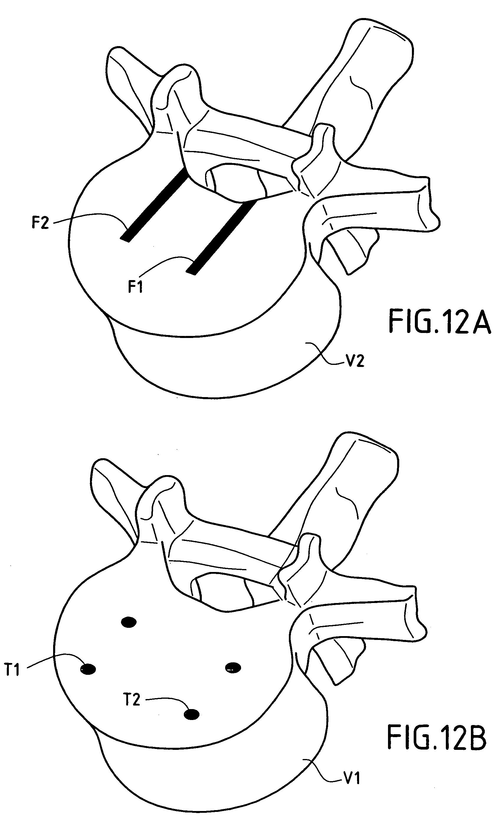 intervertebral disk prothesis