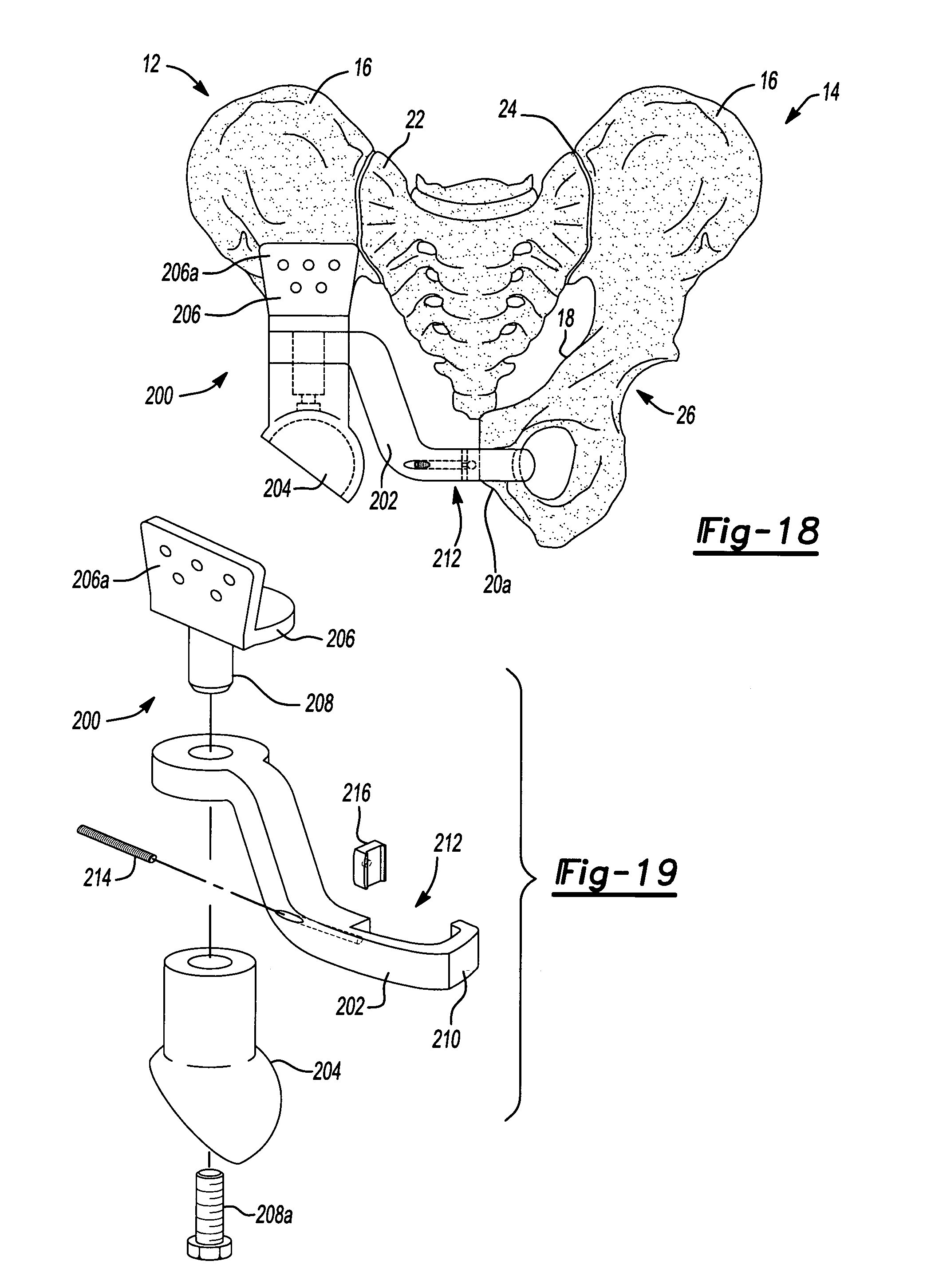 US7520902 together with US7670383 besides Ot Transfers in addition Bobath Technique For Stroke Patients Pdf ls likewise Replacement. on hemi hip replacement