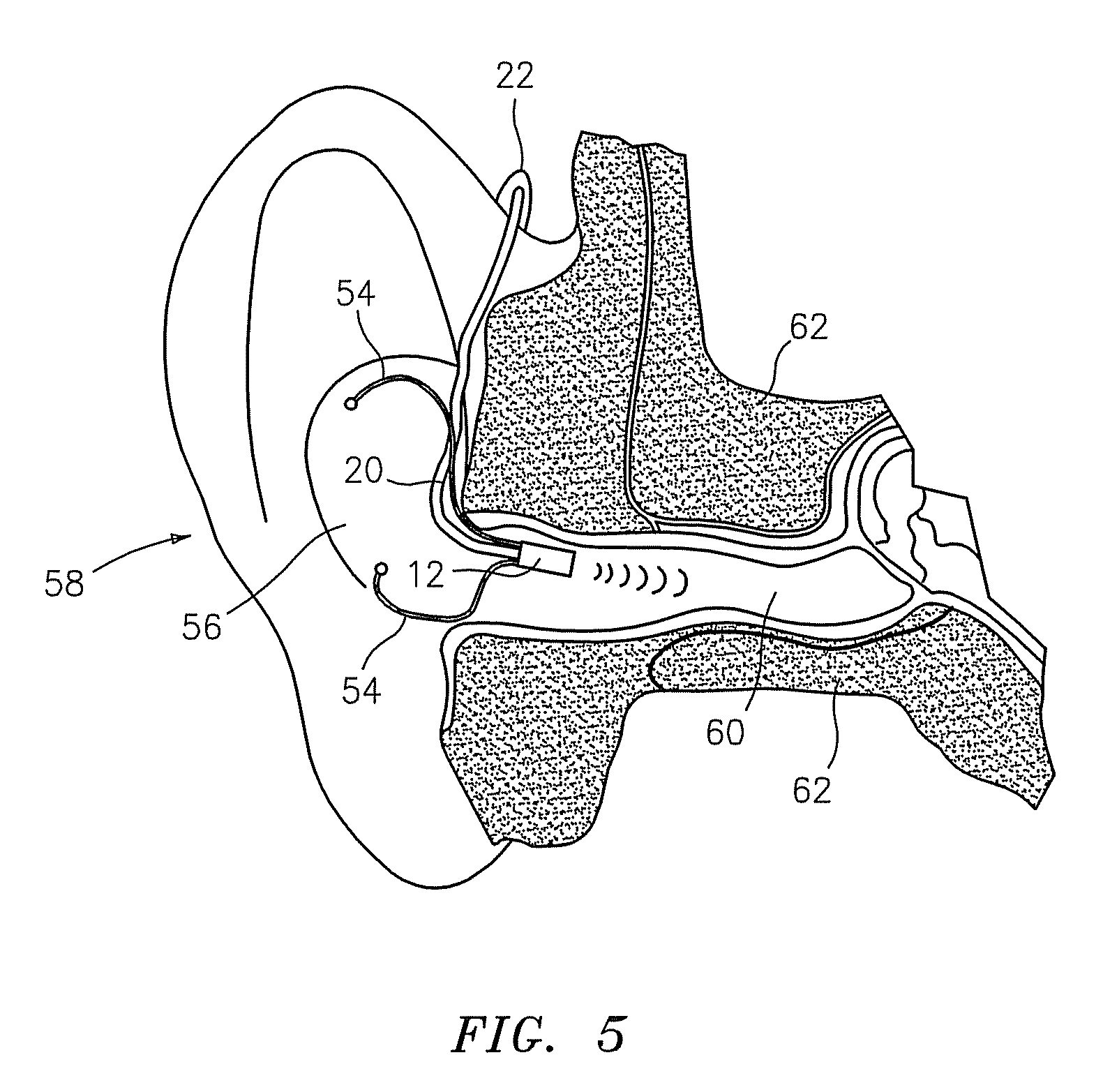 patent us7720245 - hearing aid system