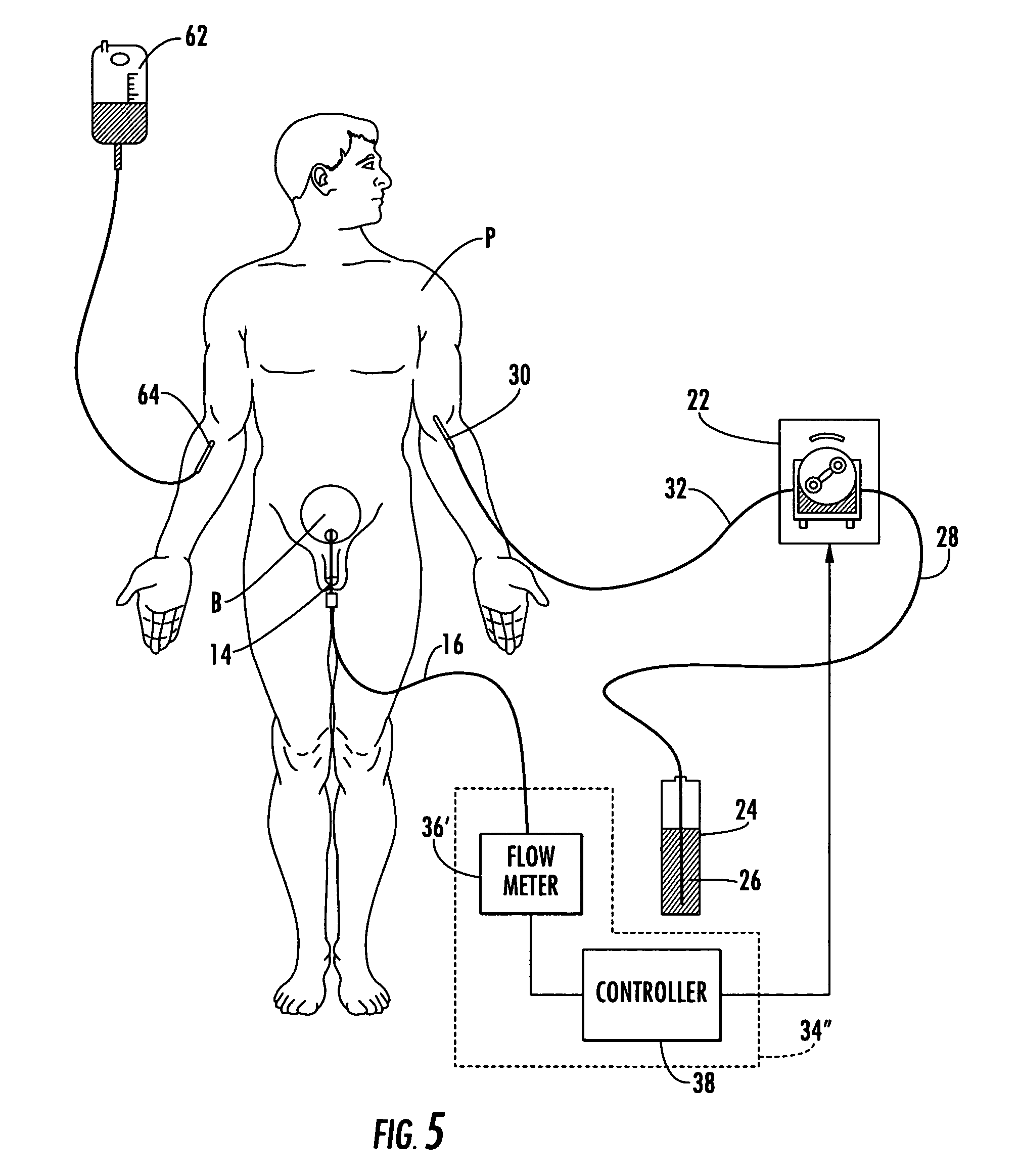 Patent Us7837667 Patient Hydration System With Abnormal Condition 1950 Plymouth Wiring Diagram Drawing