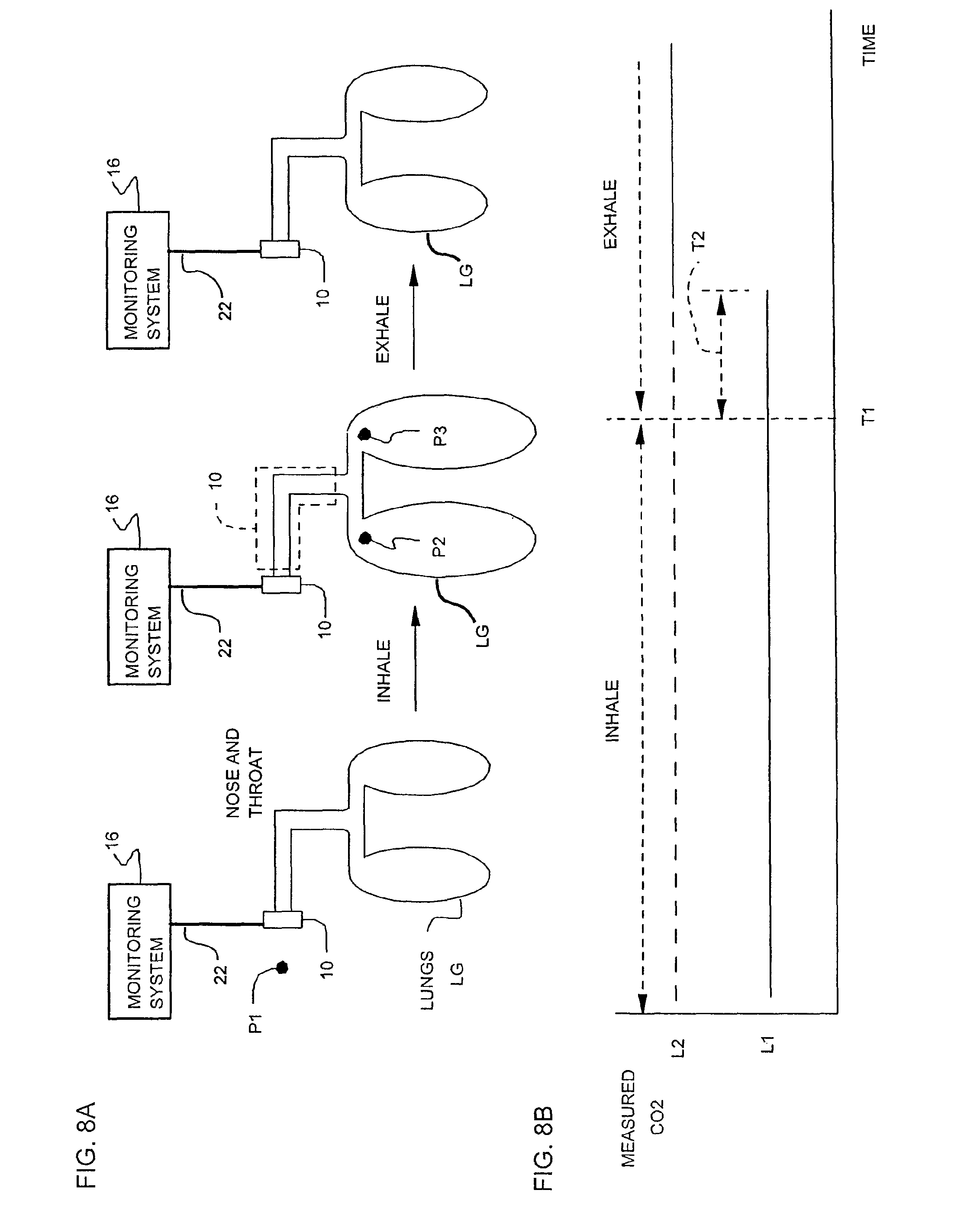 patent us7946288 - bite block system and method