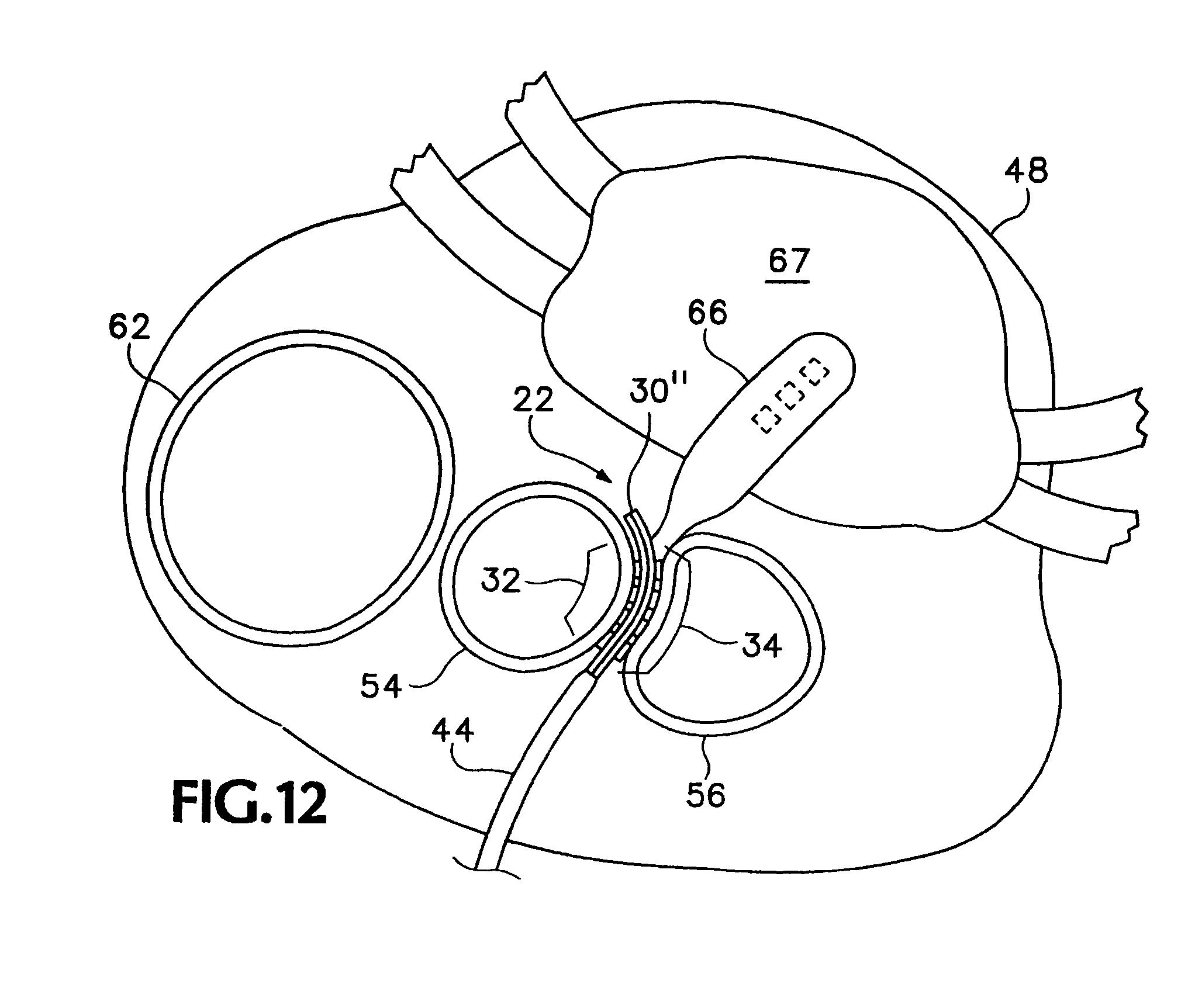 patent us8078249