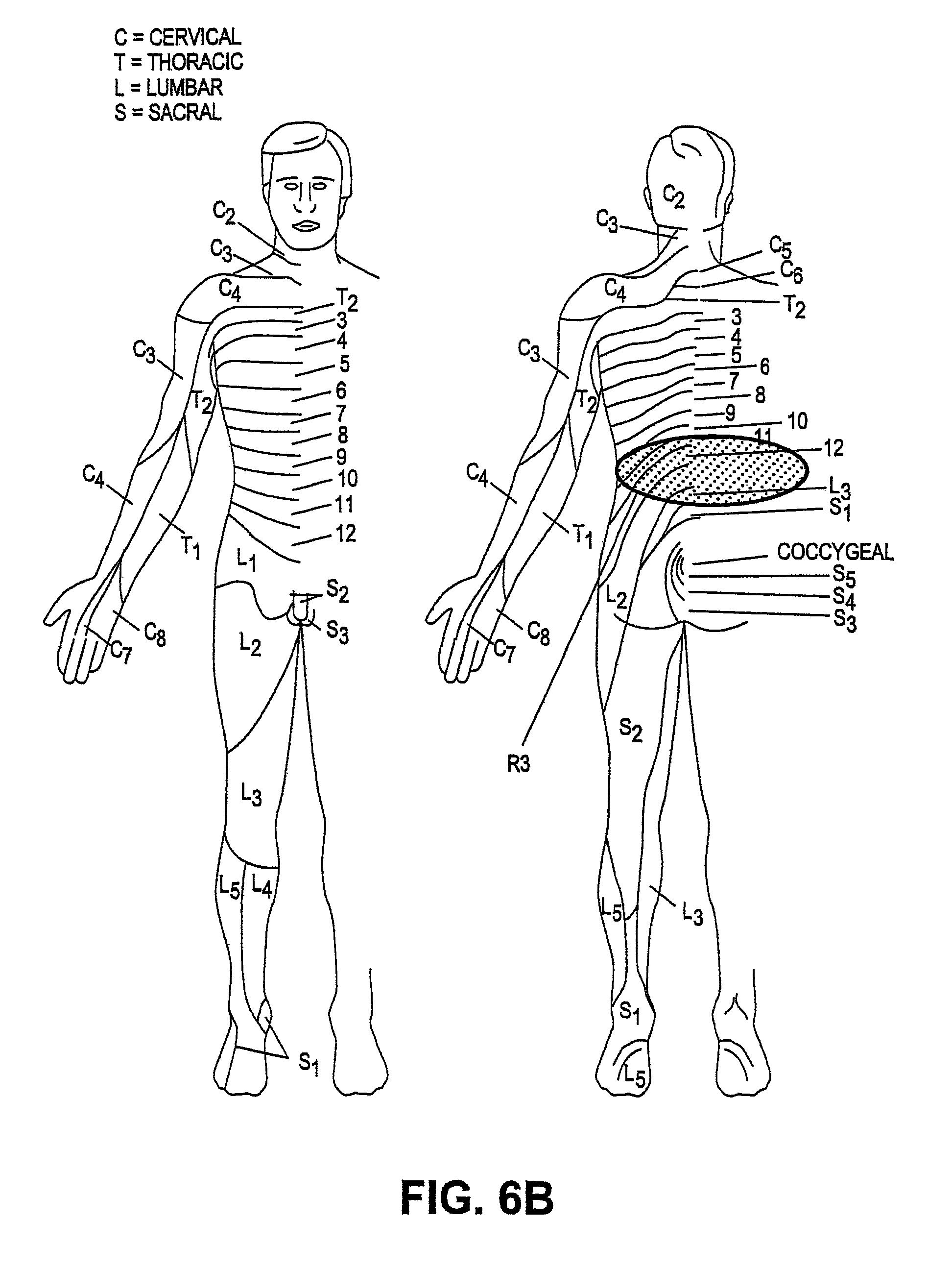 patent us8229565
