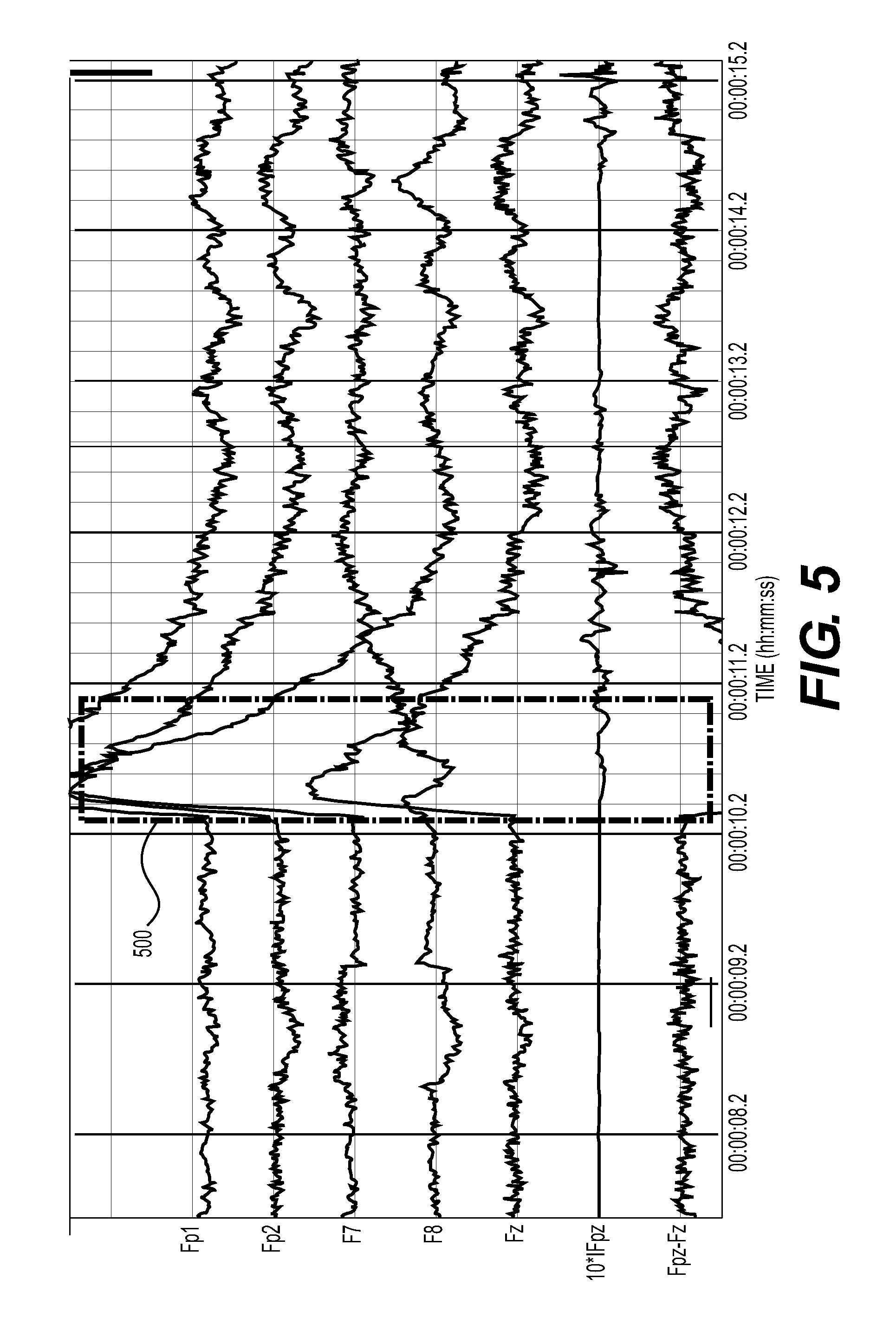 patent us8364255 - method and device for removing eeg artifacts