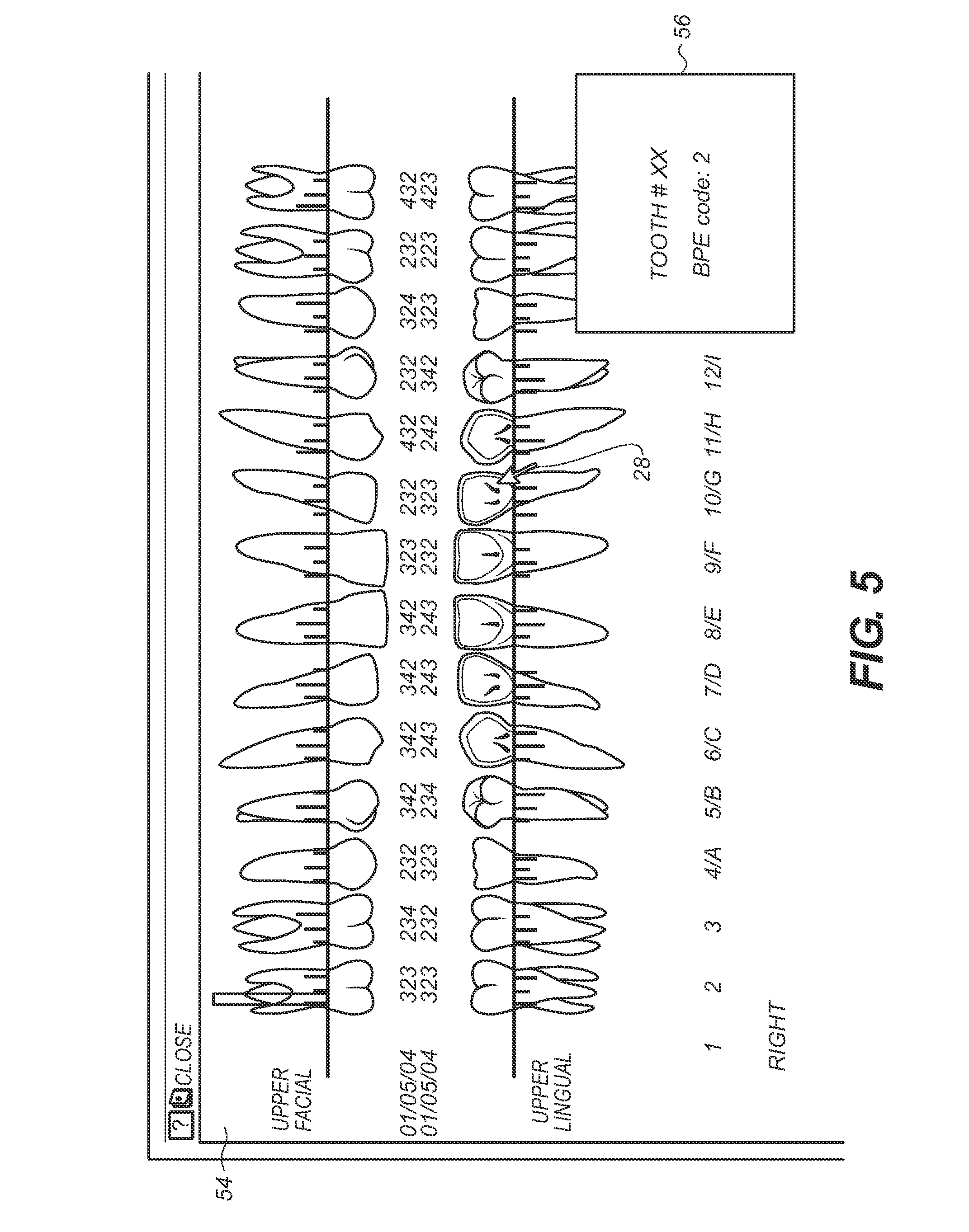 dental charting symbols: Patent us8416984 automatic tooth charting using digital images
