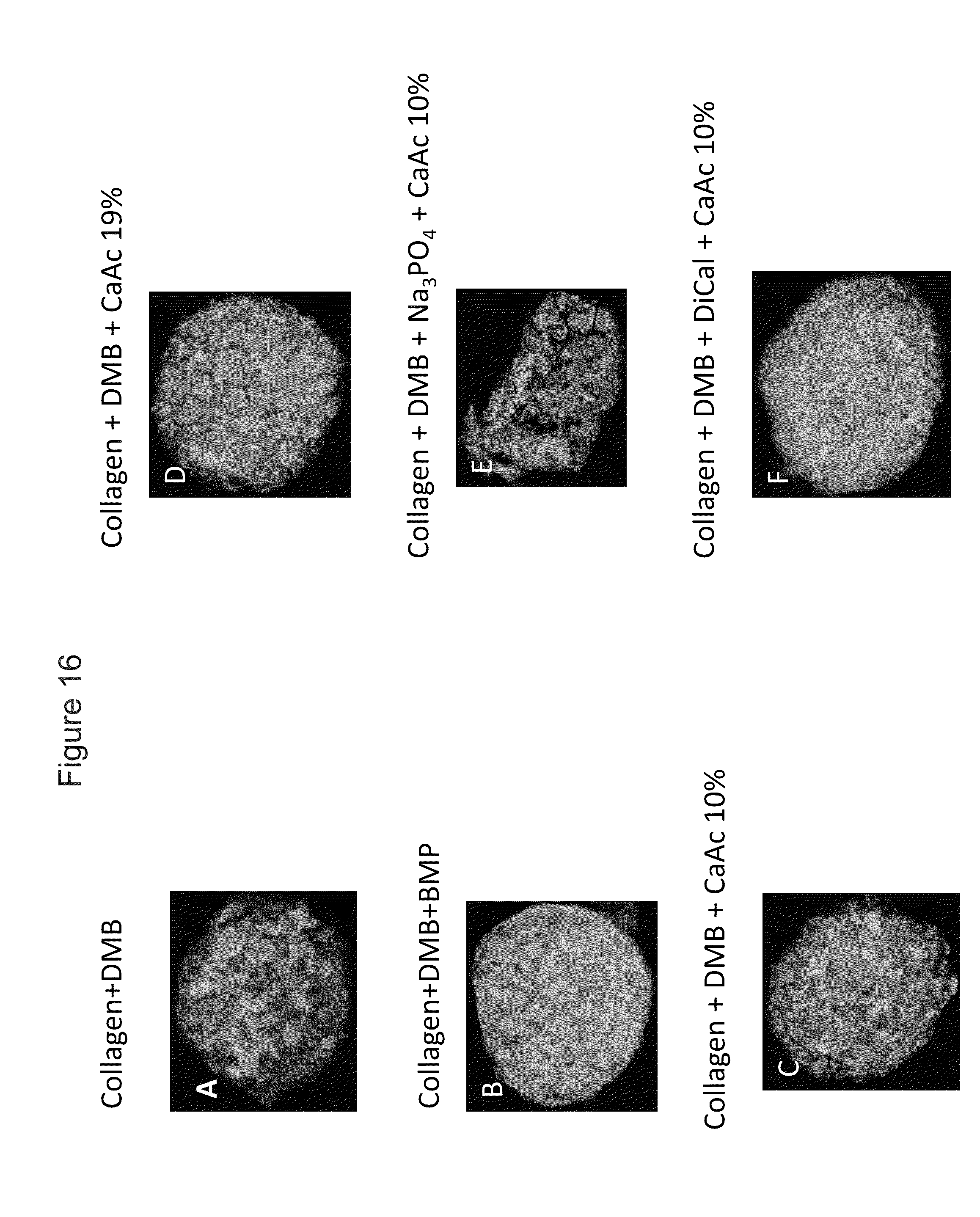 patent us8613938 - bone void fillers