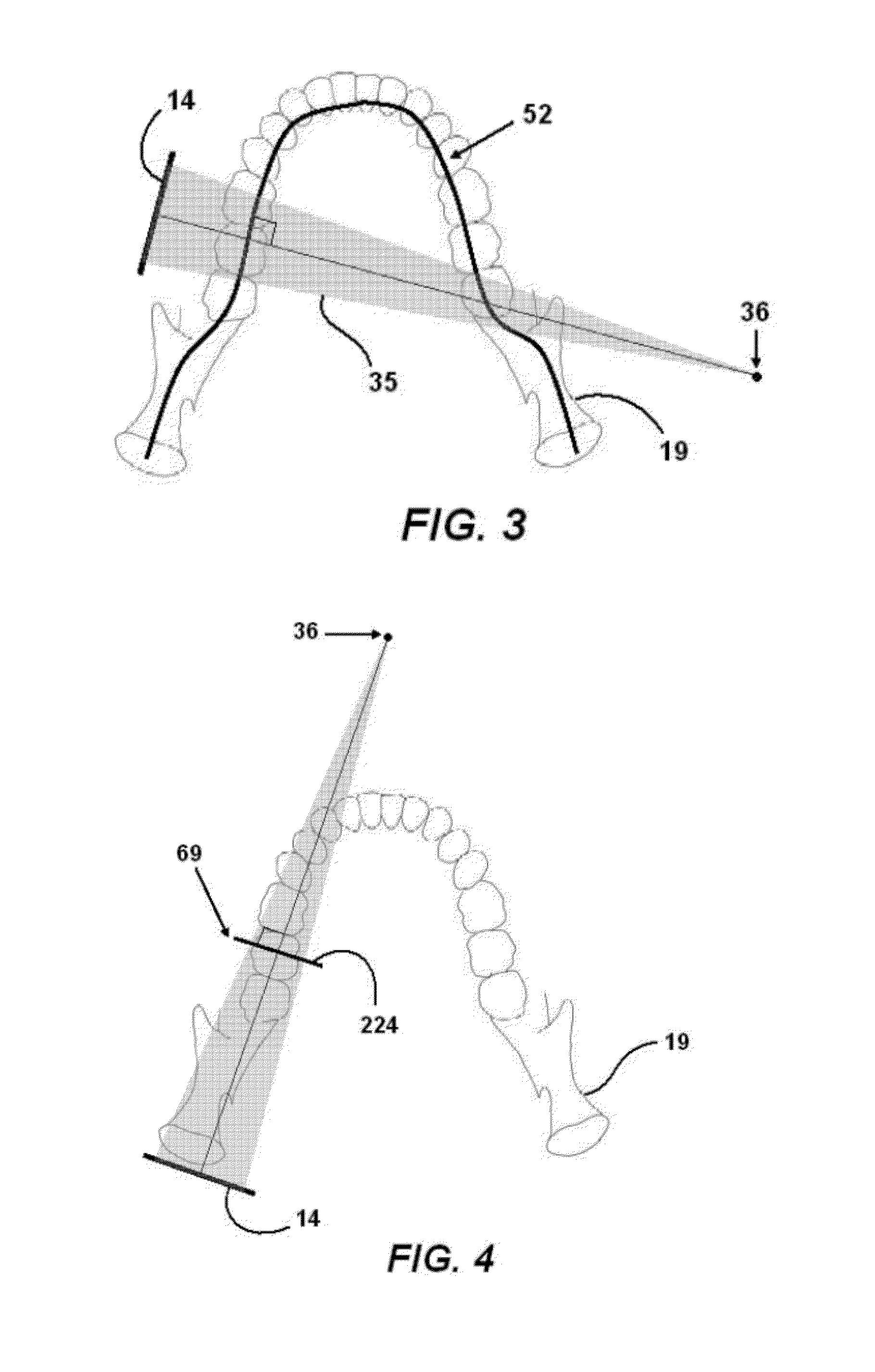 patent us8693624