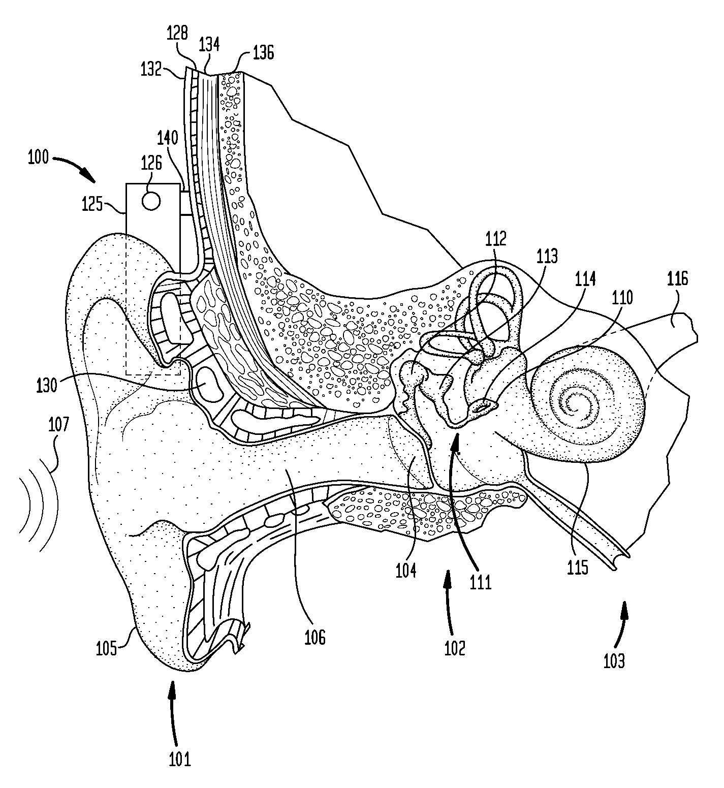 Patent Us8737649 Bone Conduction Device With A User Interface Hearing Aid Selection And Circuitry Options Drawing