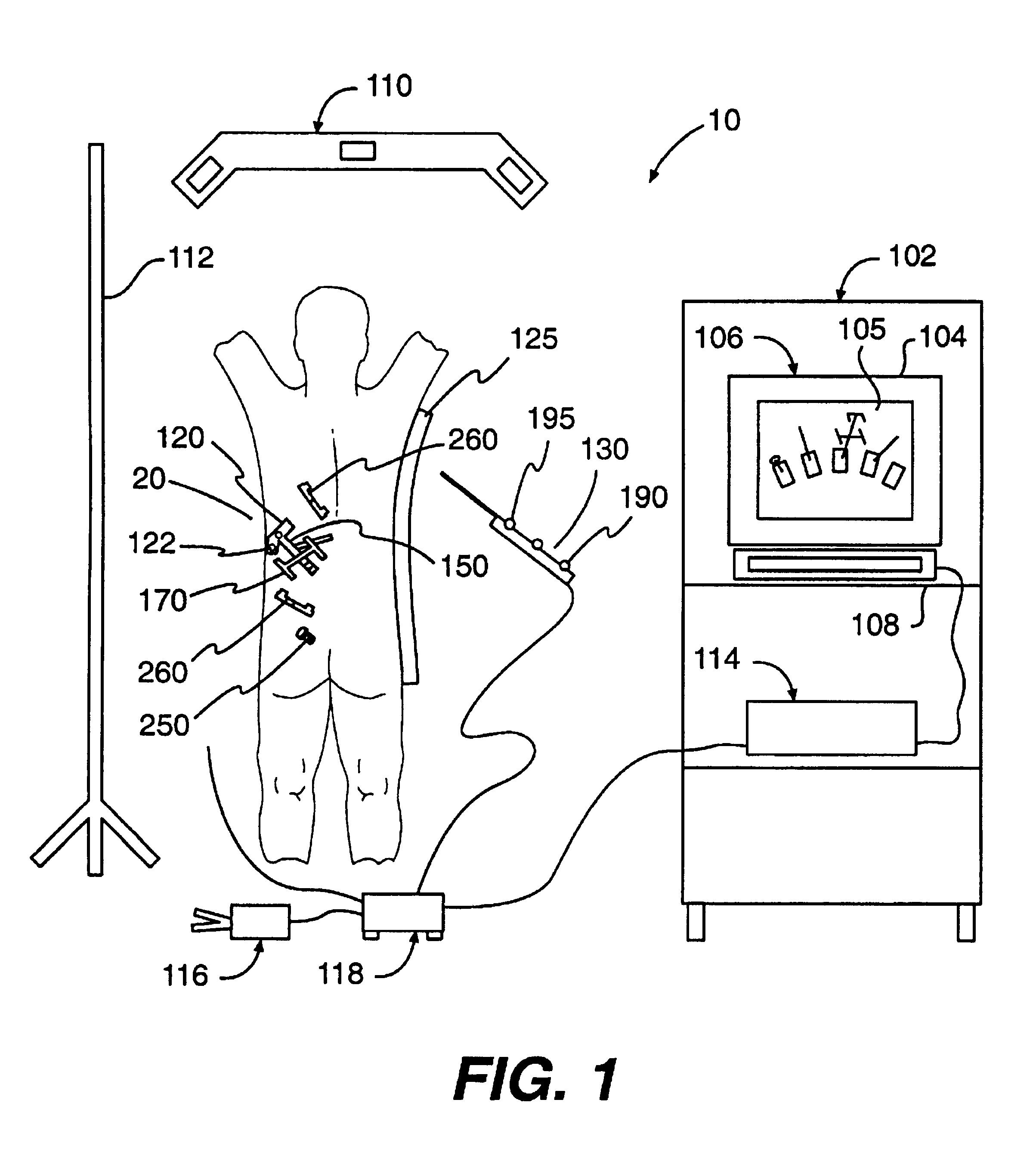 Patent USRE42226 - Percutaneous registration apparatus and method ...