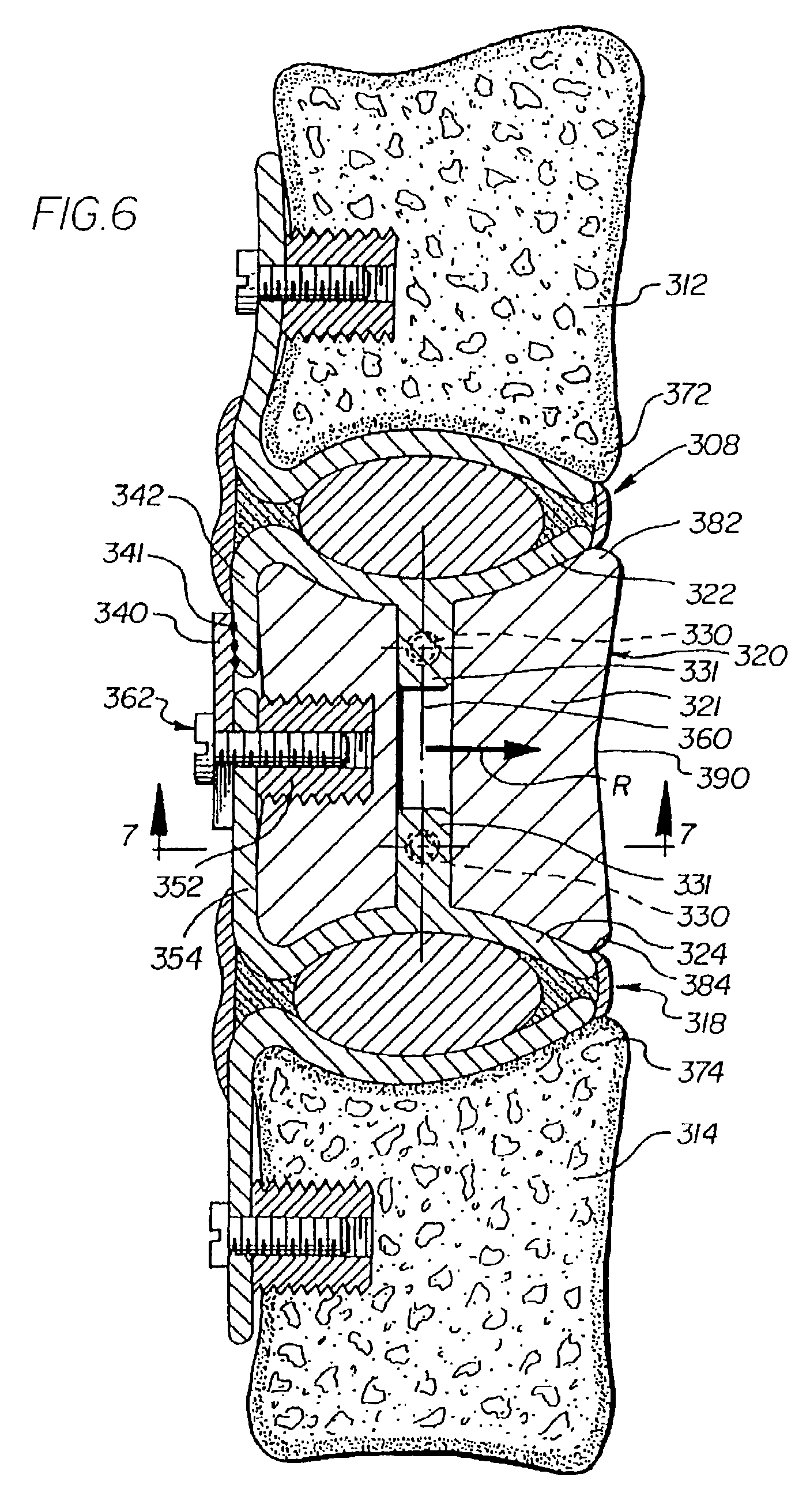 spinous prothesis Prothesis for the replacement of a  holes 150 may be provided in prosthetic spinous process 535 and the two prosthetic transverse processes 540 so as to.