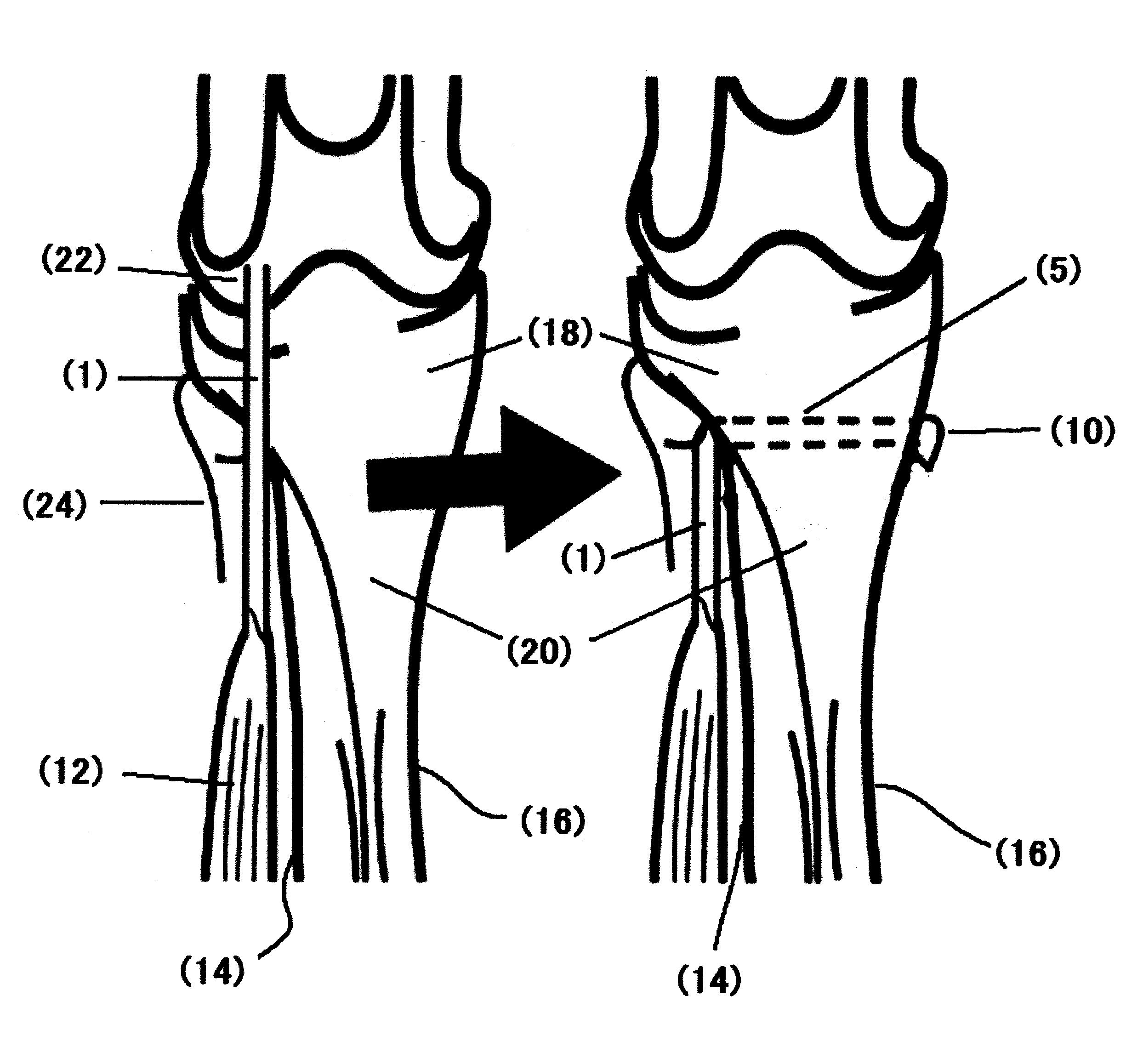 Patent Drawing     腱骨移行部組織または靭帯骨移行部組織の再生促進剤